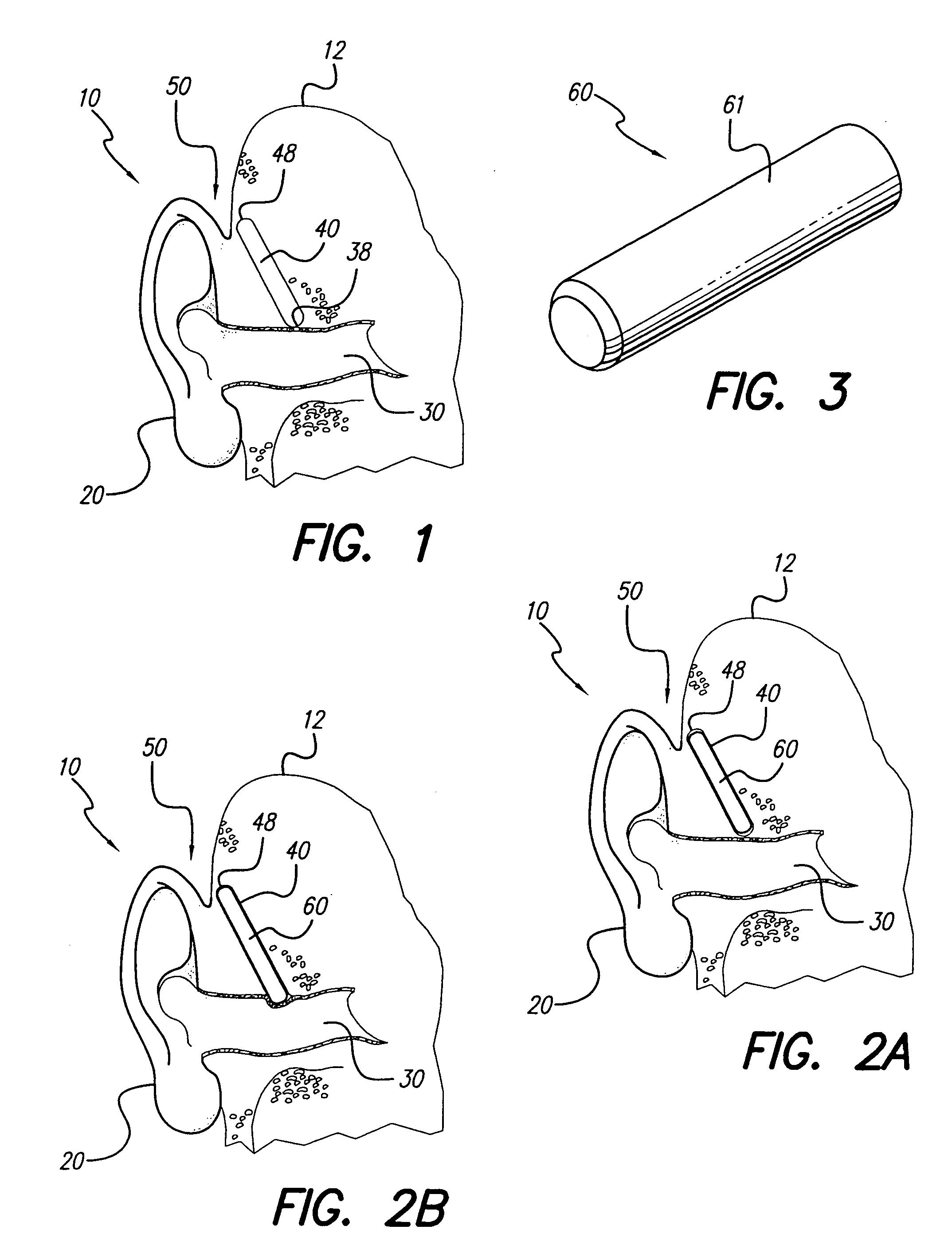 patent us7127078