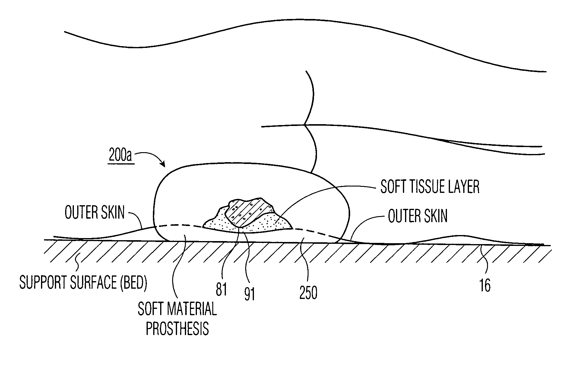 patent us7141032 - apparatus and methods for preventing and  or healing pressure ulcers