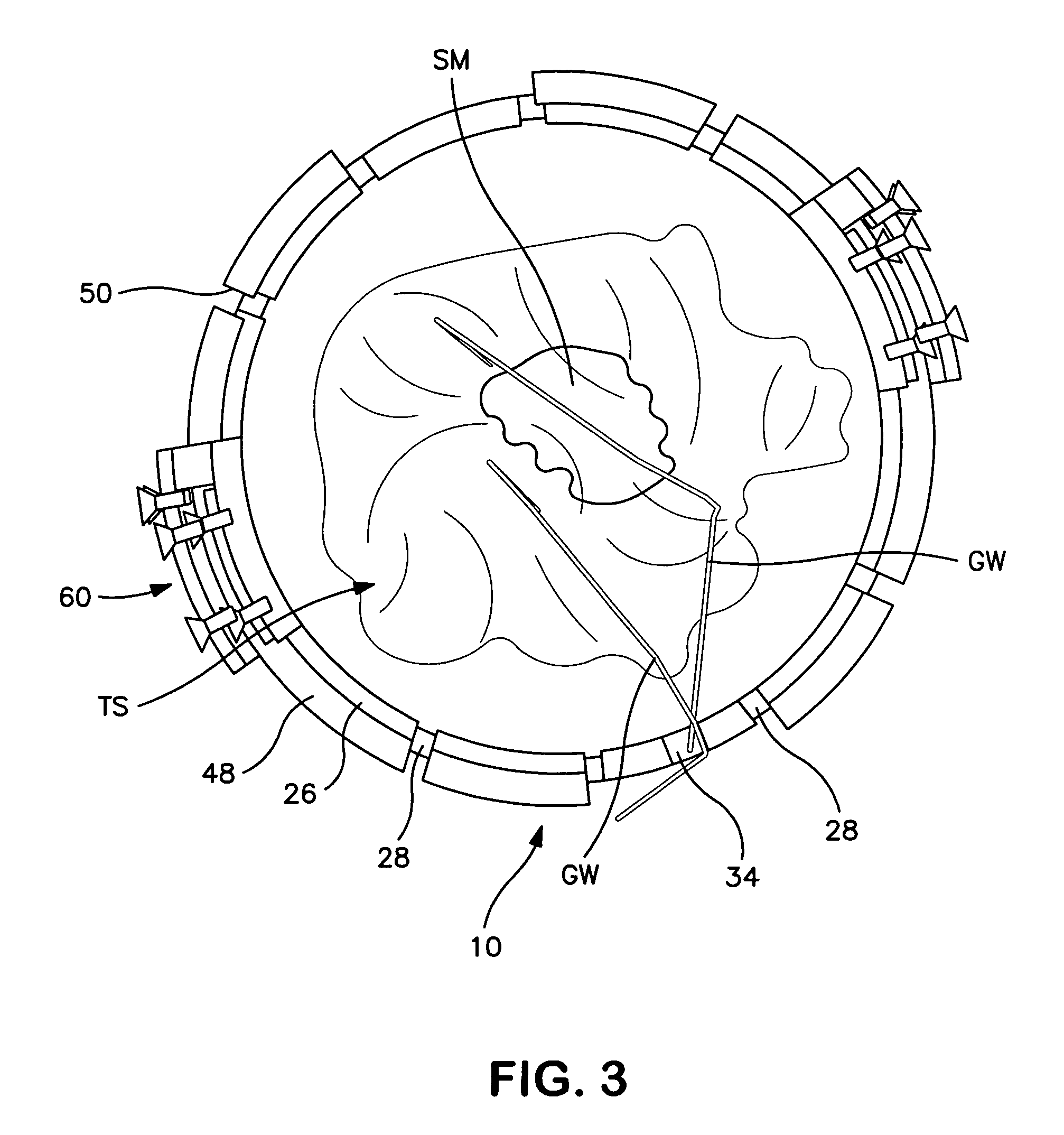 Patent US7172558 - Device for containing and analyzing surgically ...