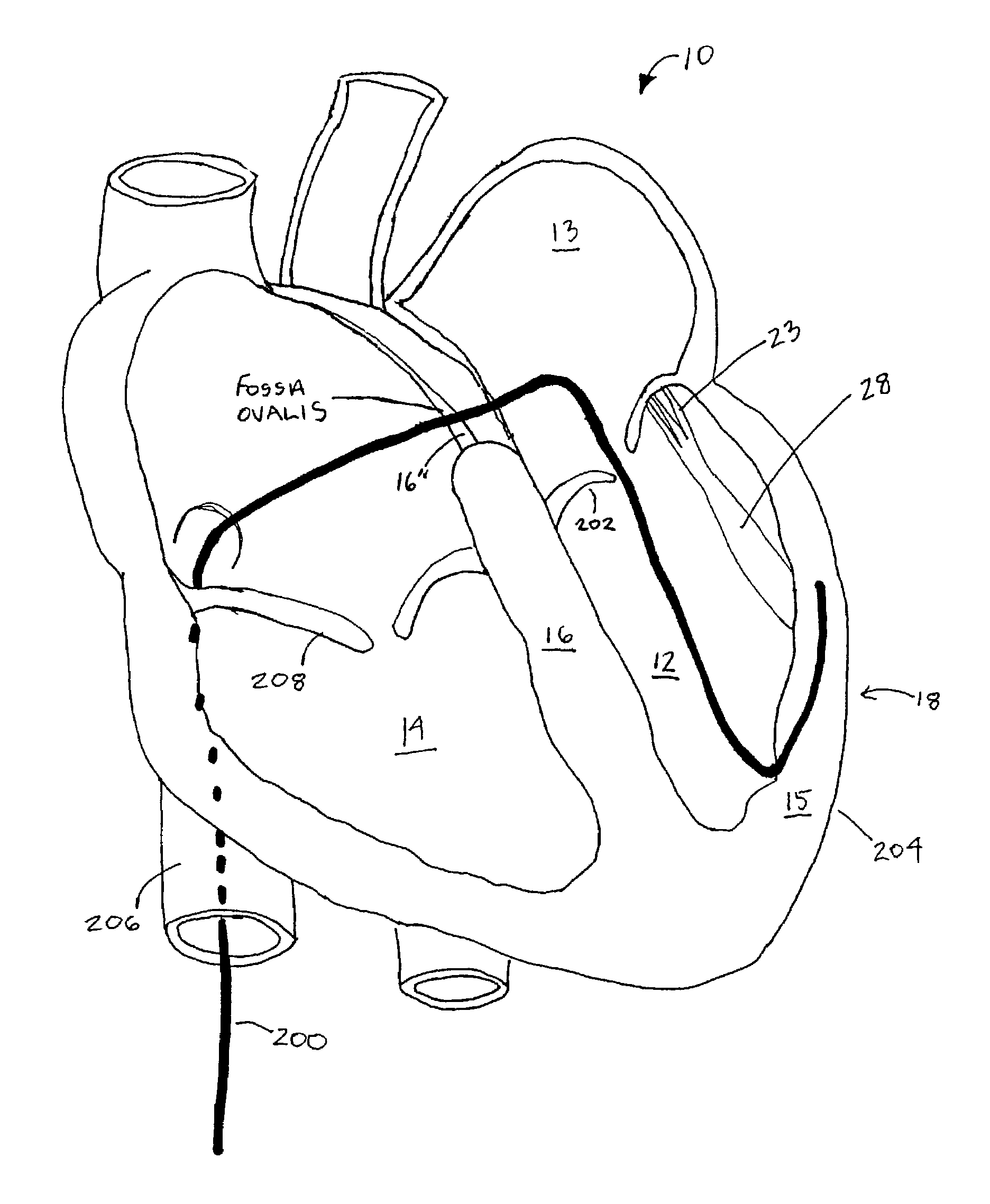 patent us7311731 prevention of myocardial infarction induced Case 220 Tractor Diagrams patent drawing