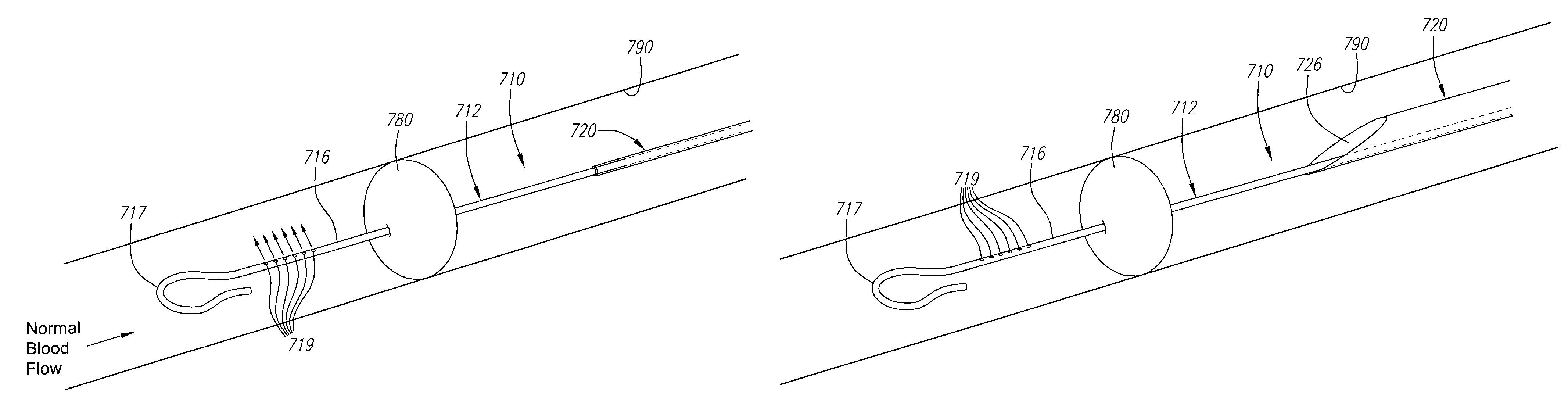 Patent US7591832 - Expandable guide sheath and apparatus ... Lubricious Definition