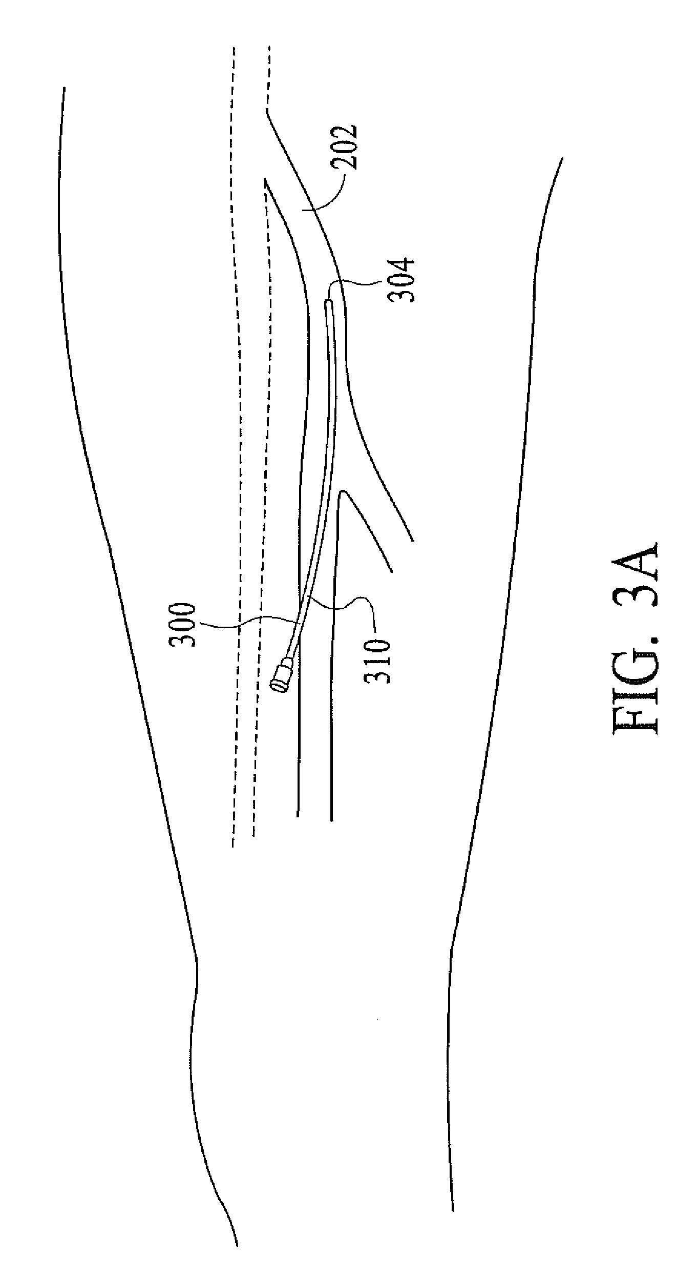 patent us7644715