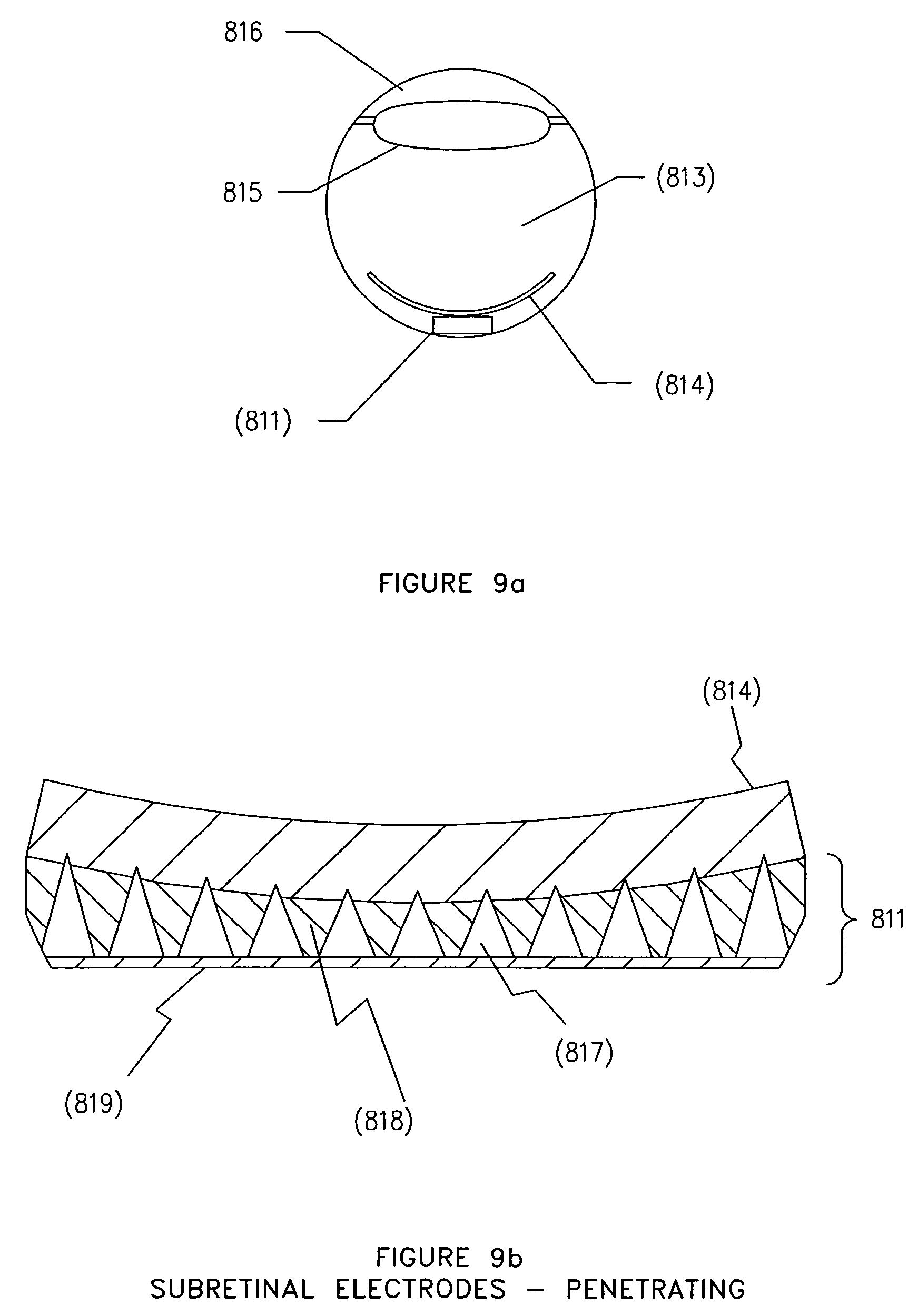 visual prothesis Fig 1: electric stimulation to the optic nerve (veraart, c, et al pattern recognition with the optic nerve visual prosthesis artificial organs 2711.