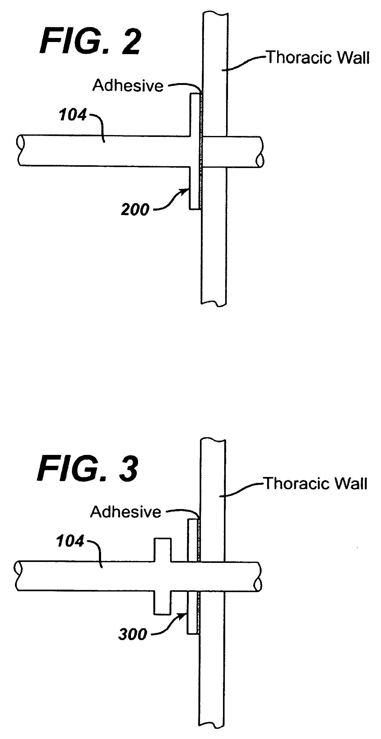 patent us7686013