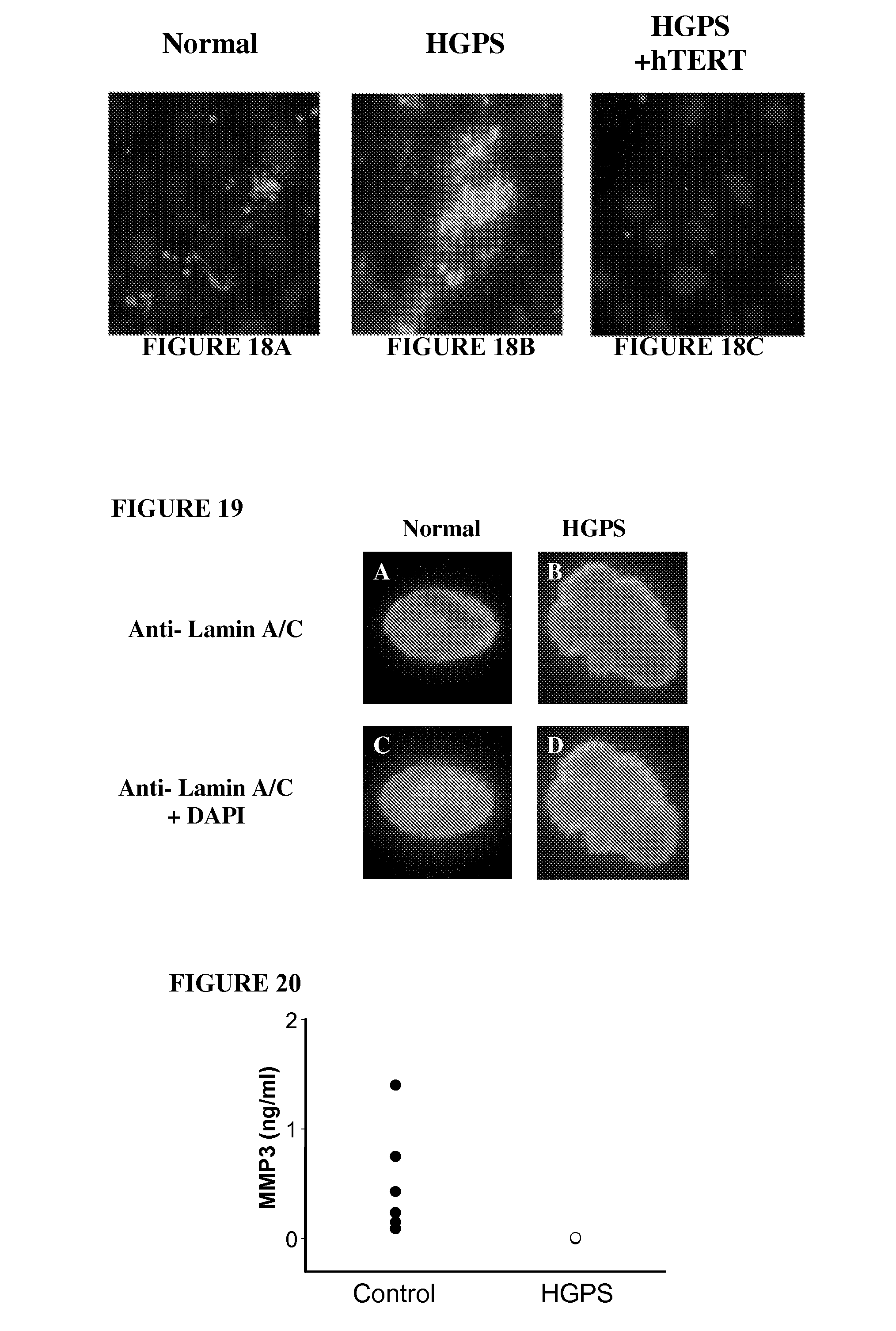 Patent DrawingFarnesyltransferase Inhibitors Progeria