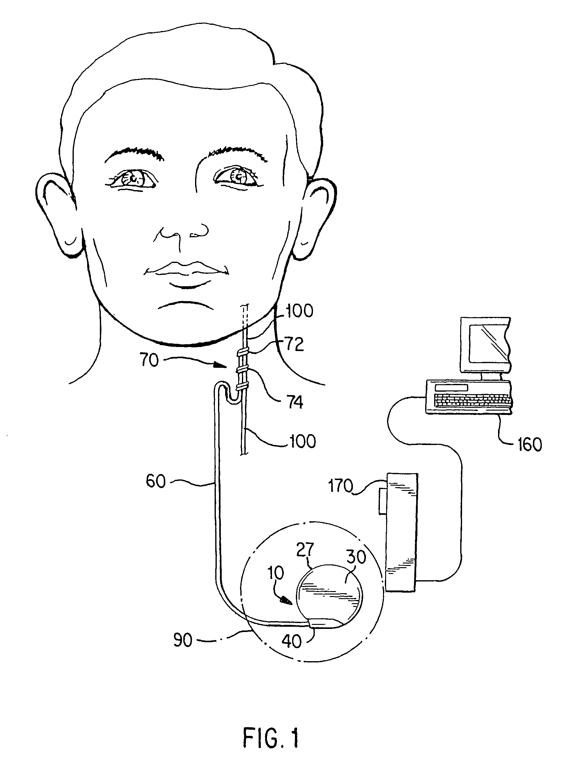 Patent Us7840280 Cranial Nerve Stimulation To Treat A Vocal Cord Electrotherapy Stimulator Drawing