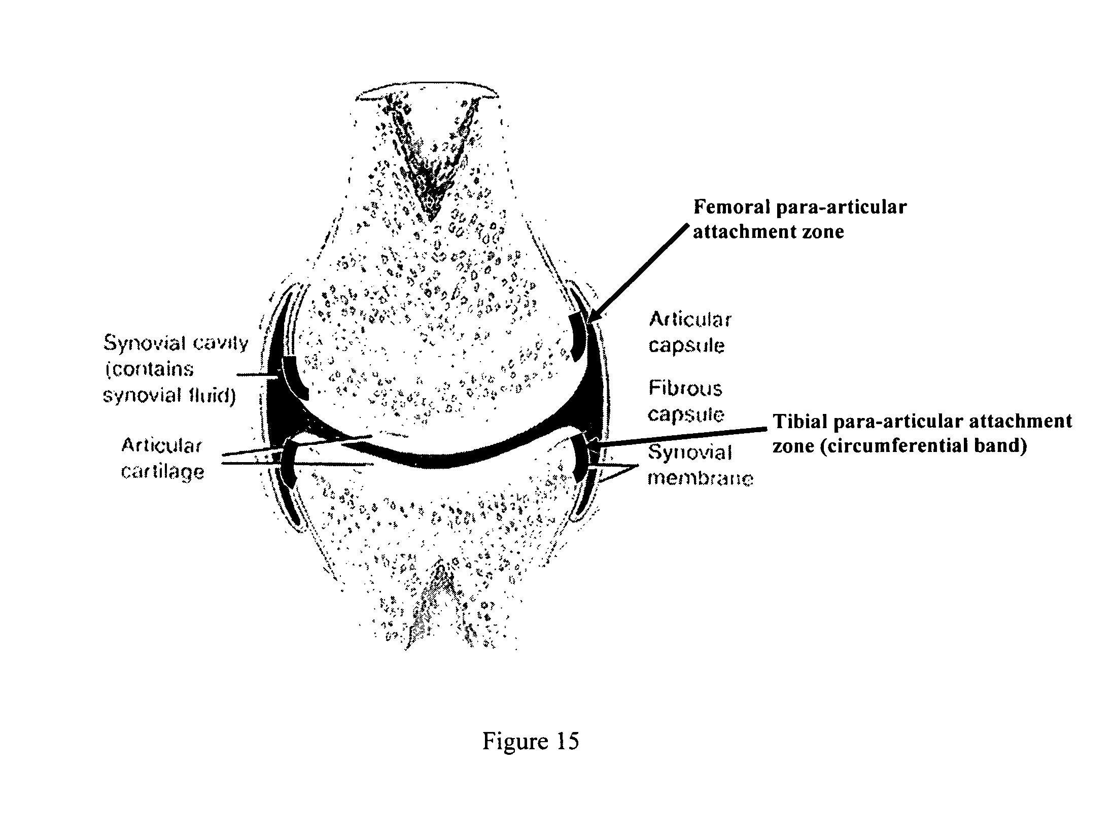 fibromyalgia amitriptyline