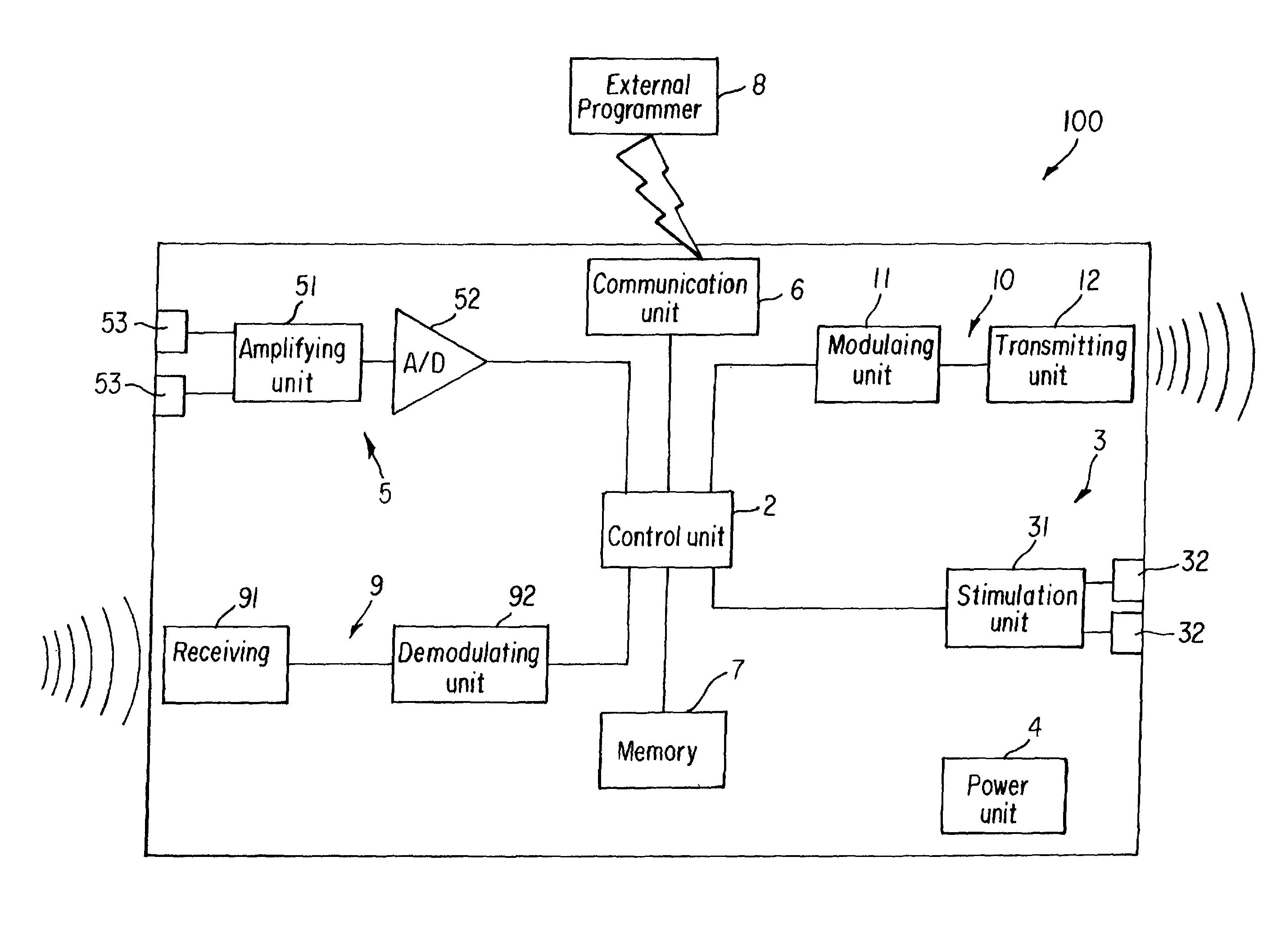 电路 电路图 电子 原理图 2805_2113