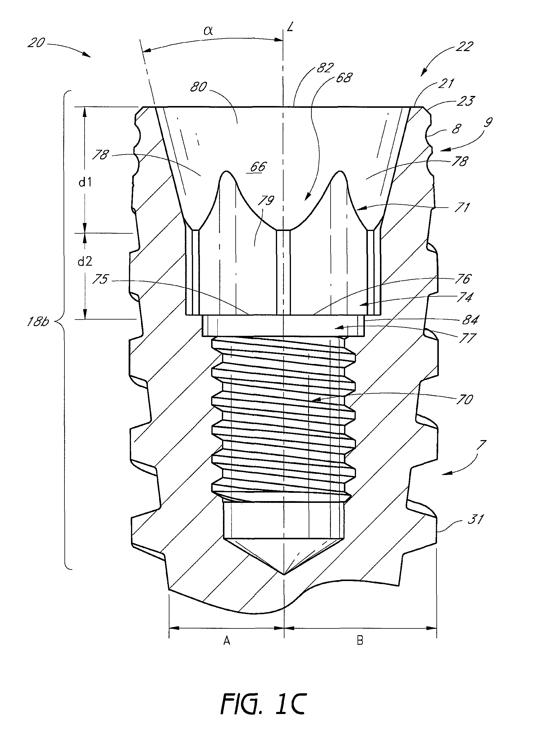 Patent Us8038442 Dental Implant And Dental Component