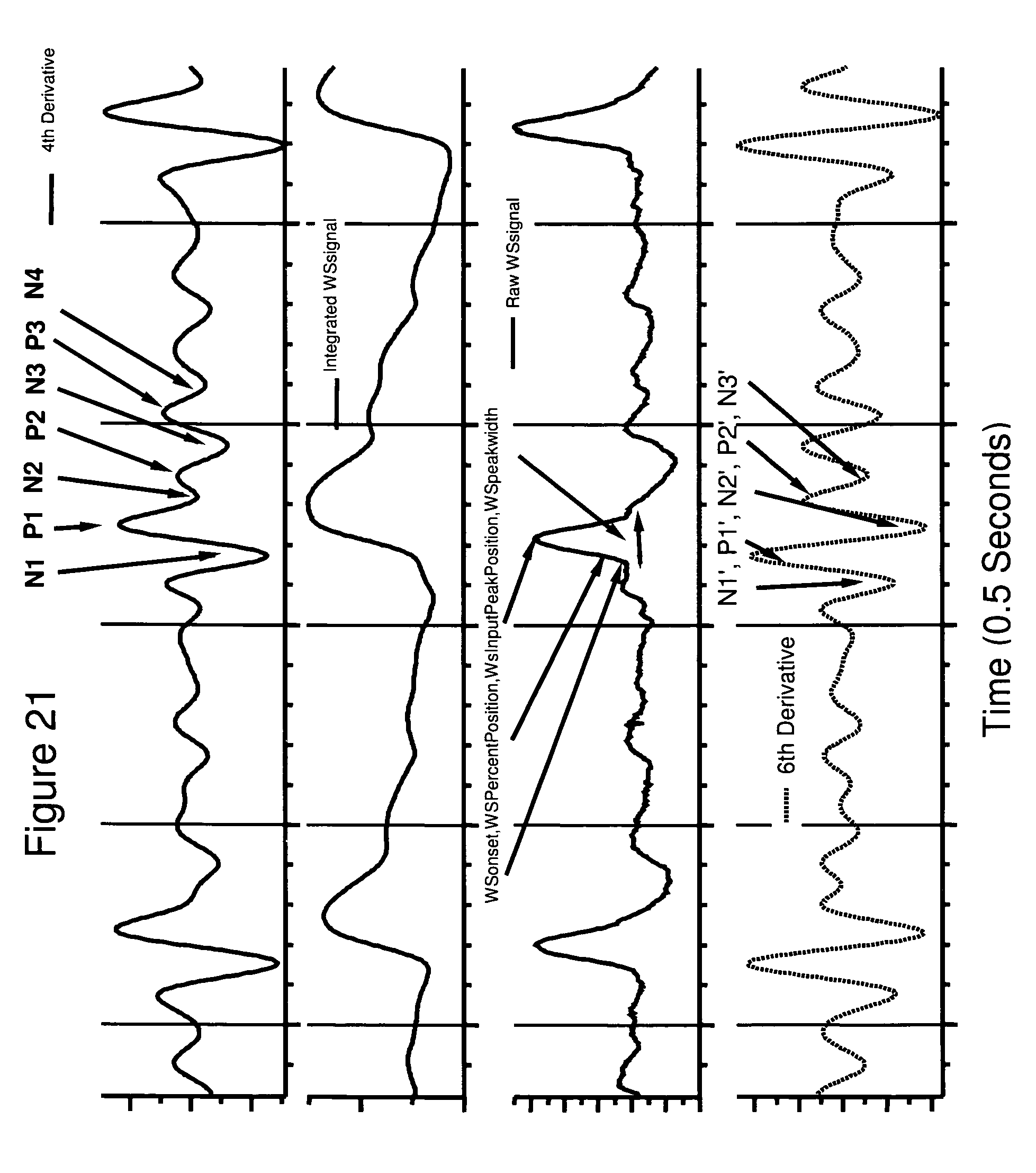 an analysis of the method of measuring arterial blood pressure Blood pressure (bp) measurement and pain assessment should be part of the   the oscillometric method records the motion (oscillations) of the artery under a   interpretation of bp measurements can be complicated by breakthrough beats.
