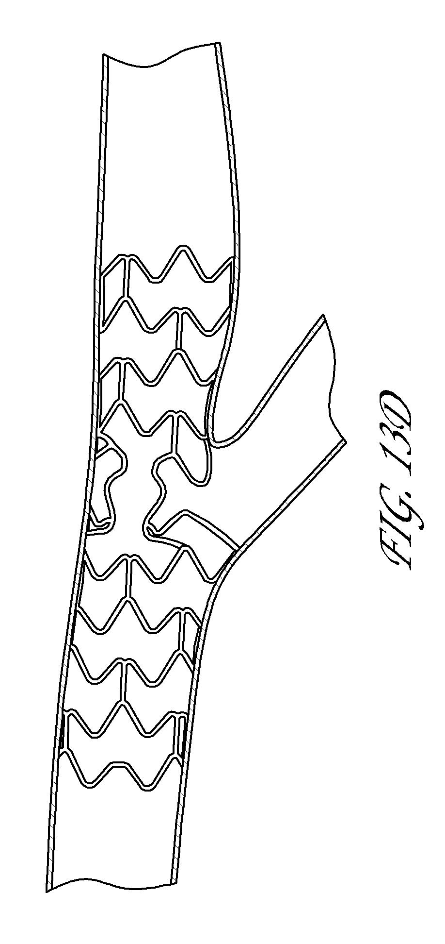 catheter prothesis Wwwgooglecombr.