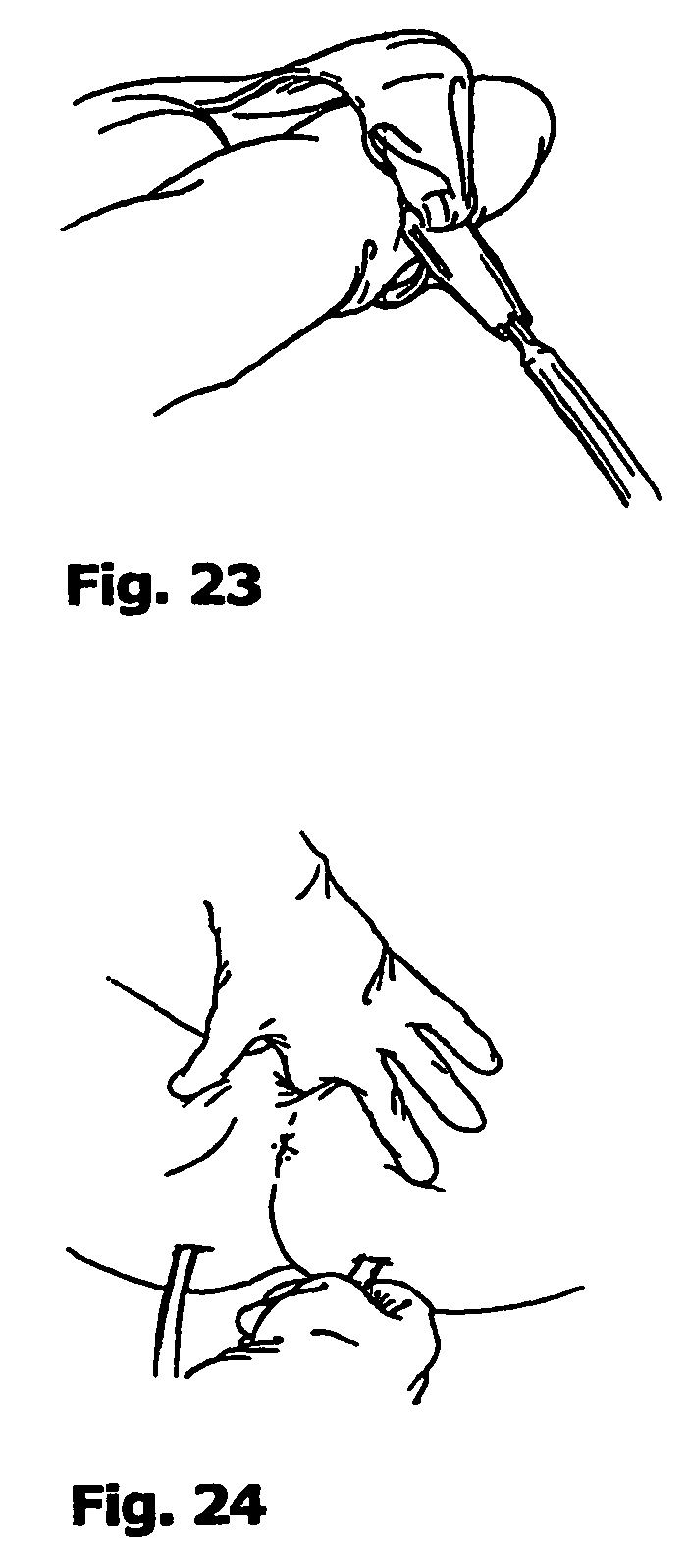 patent us8211005