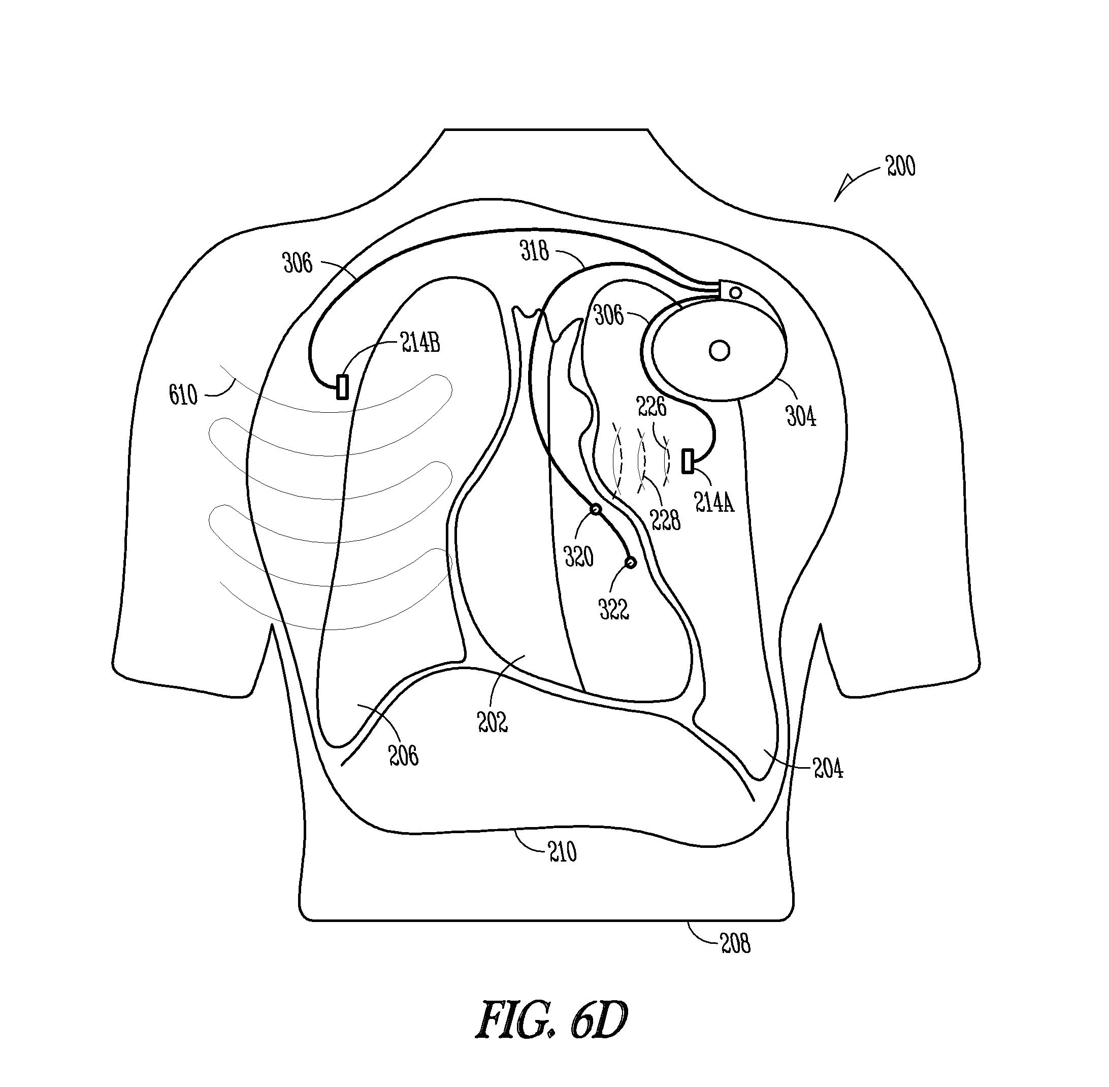 patent us8221323