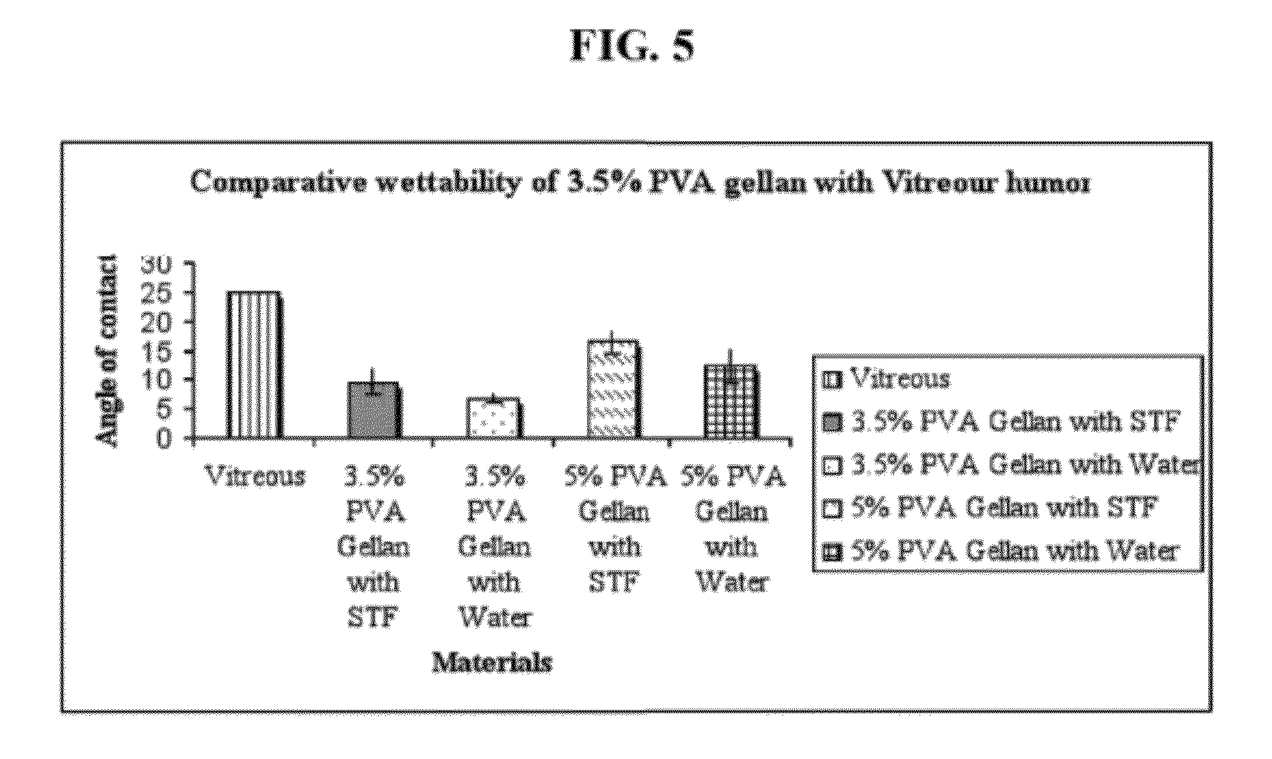 Ethyl Alcohol in Vitreous Humor  Ethanol  Autopsy