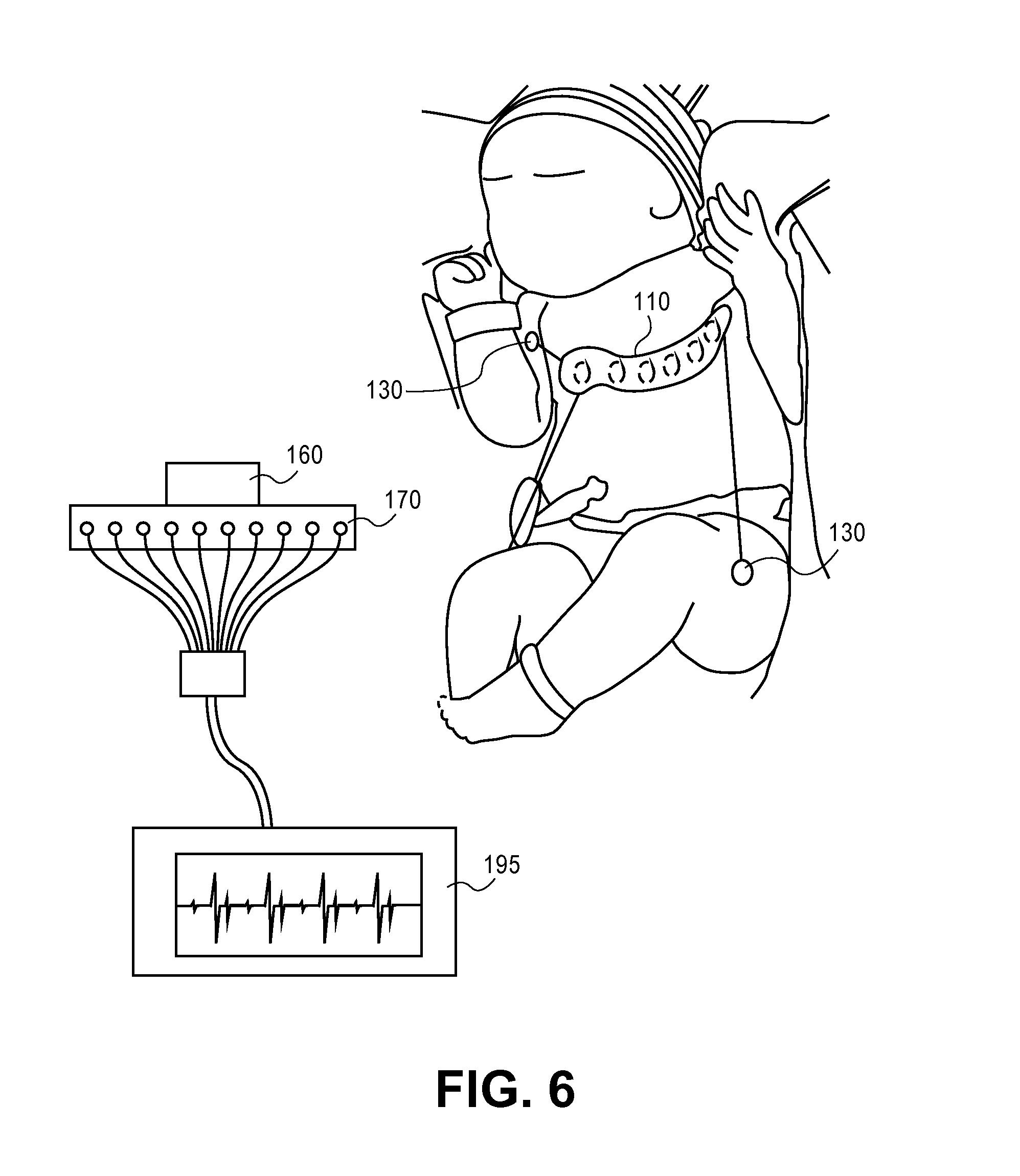 patent us8369924