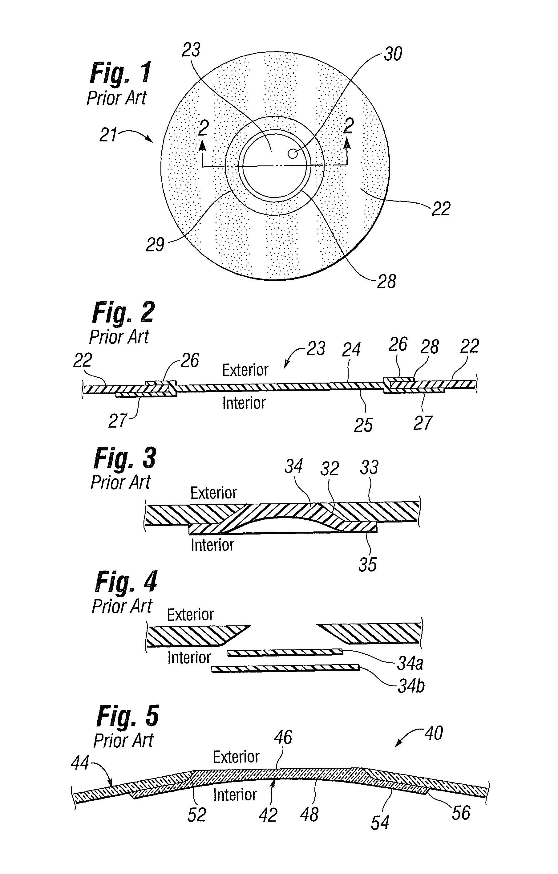 Patent US Flush patch for elastomeric implant shell