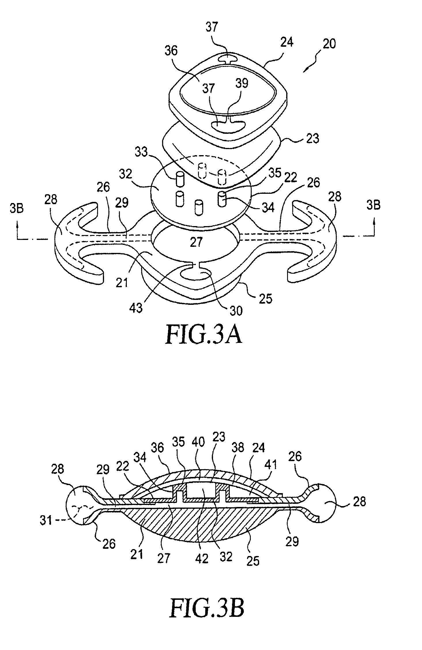 patent us8454688 accommodating intraocular lens having