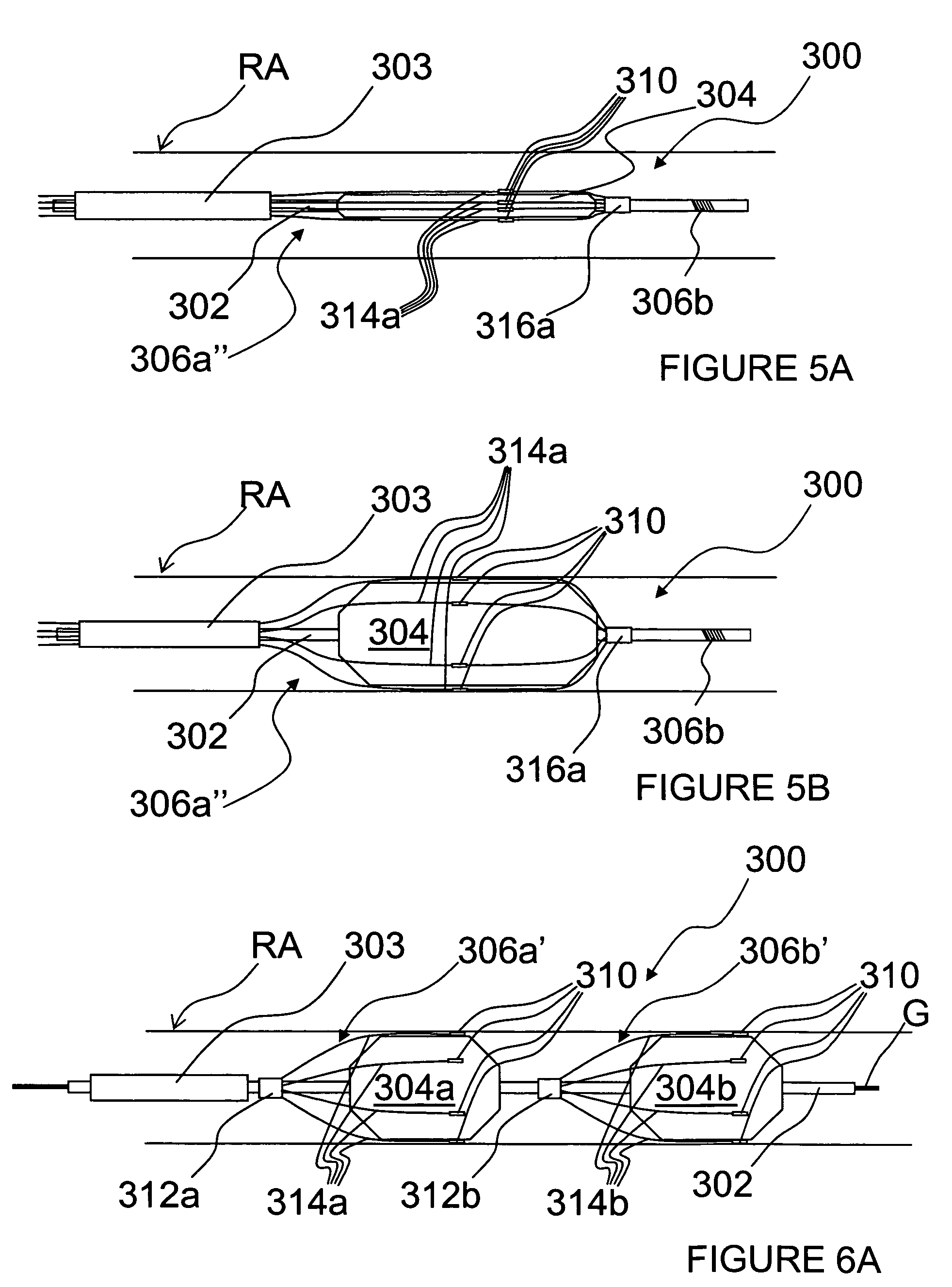 Patent Us8774913 Methods And Apparatus For Intravasculary Induced 1911 Pistol Diagram Free Download Wiring Diagrams Pictures Drawing