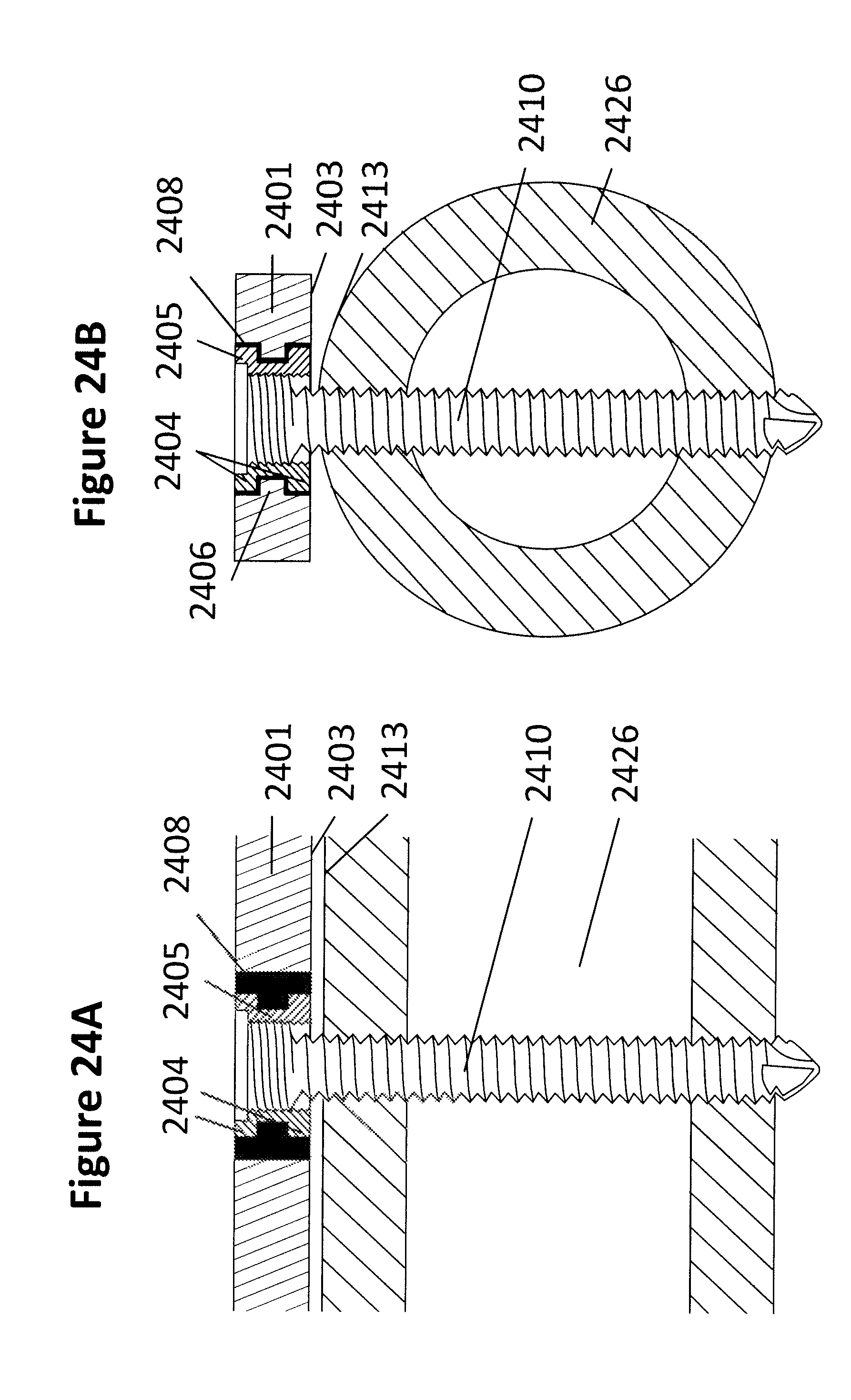 Elastic plate osteosynthesis