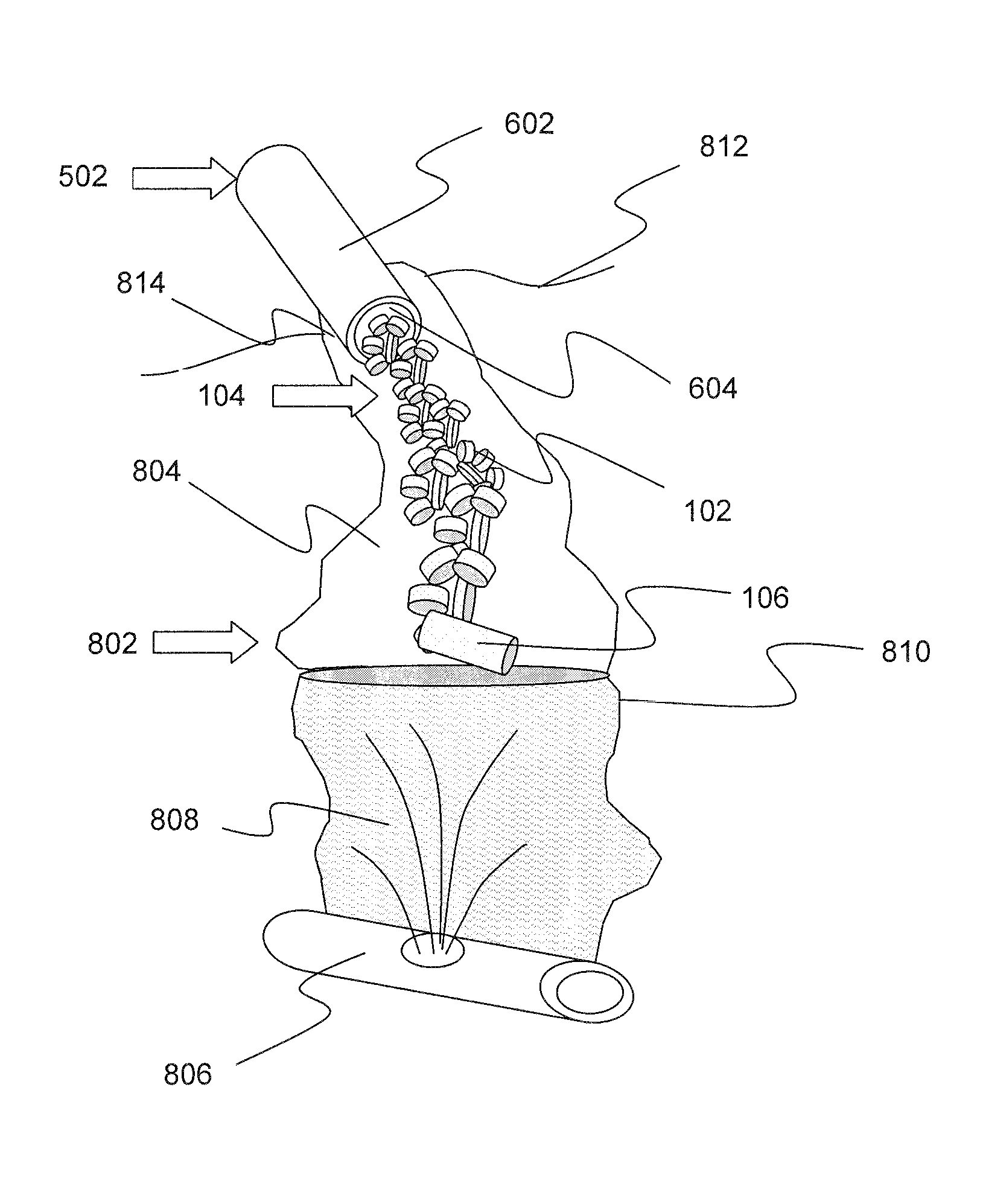 Patent US Hemorrhage control devices and methods Google