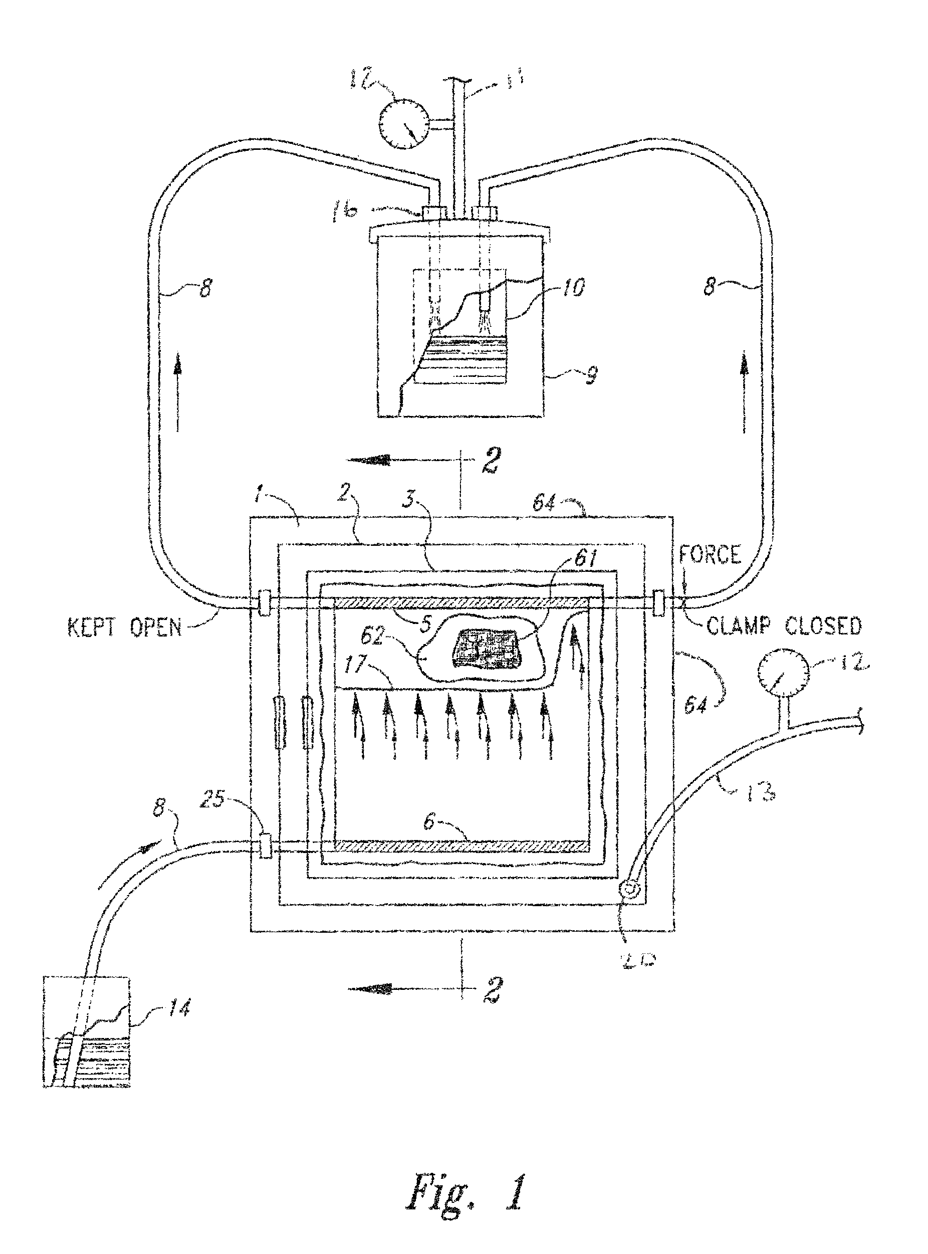 Patent Us8851879 Double Bag Vacuum Infusion Process And System Block Bell Wiring Diagram Drawing