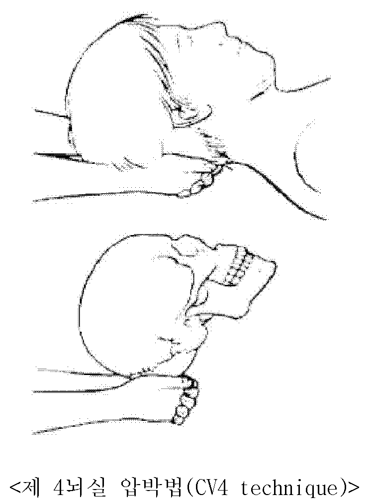 Patent WO2011096663A2 - Fixed pillow for deep sleep ...