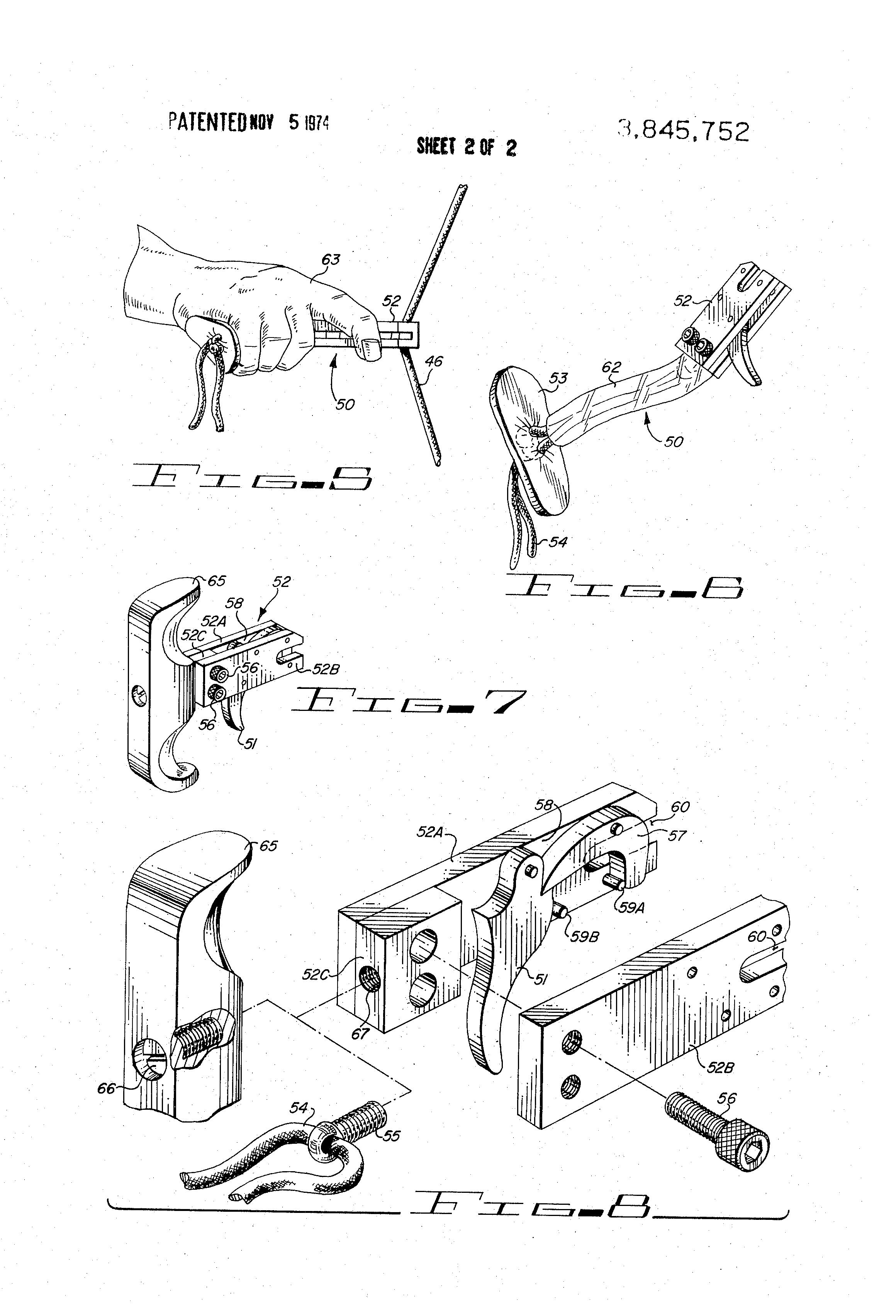 archery release diagram