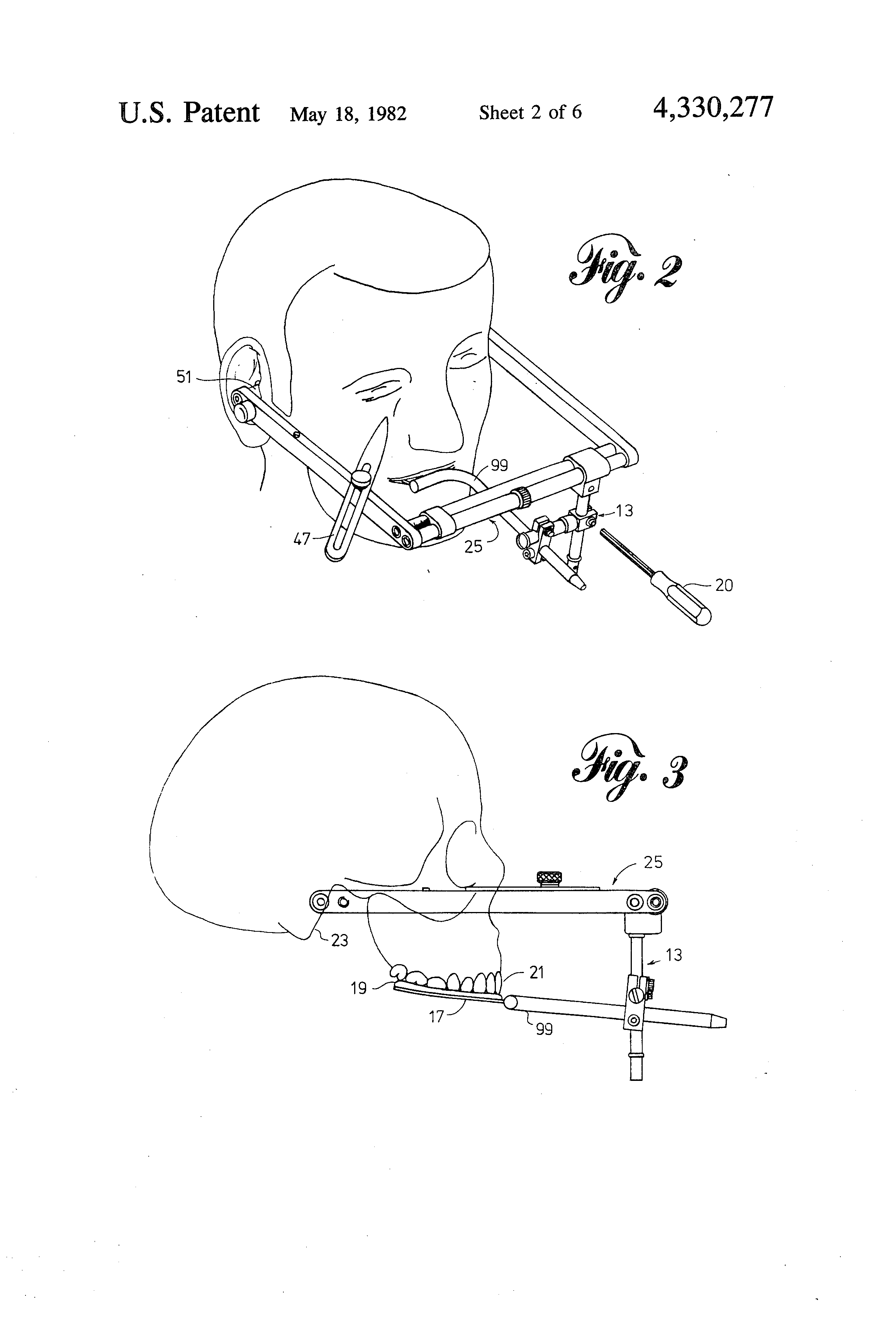 Straight Line Articulator : Patent us dental face bow google patents