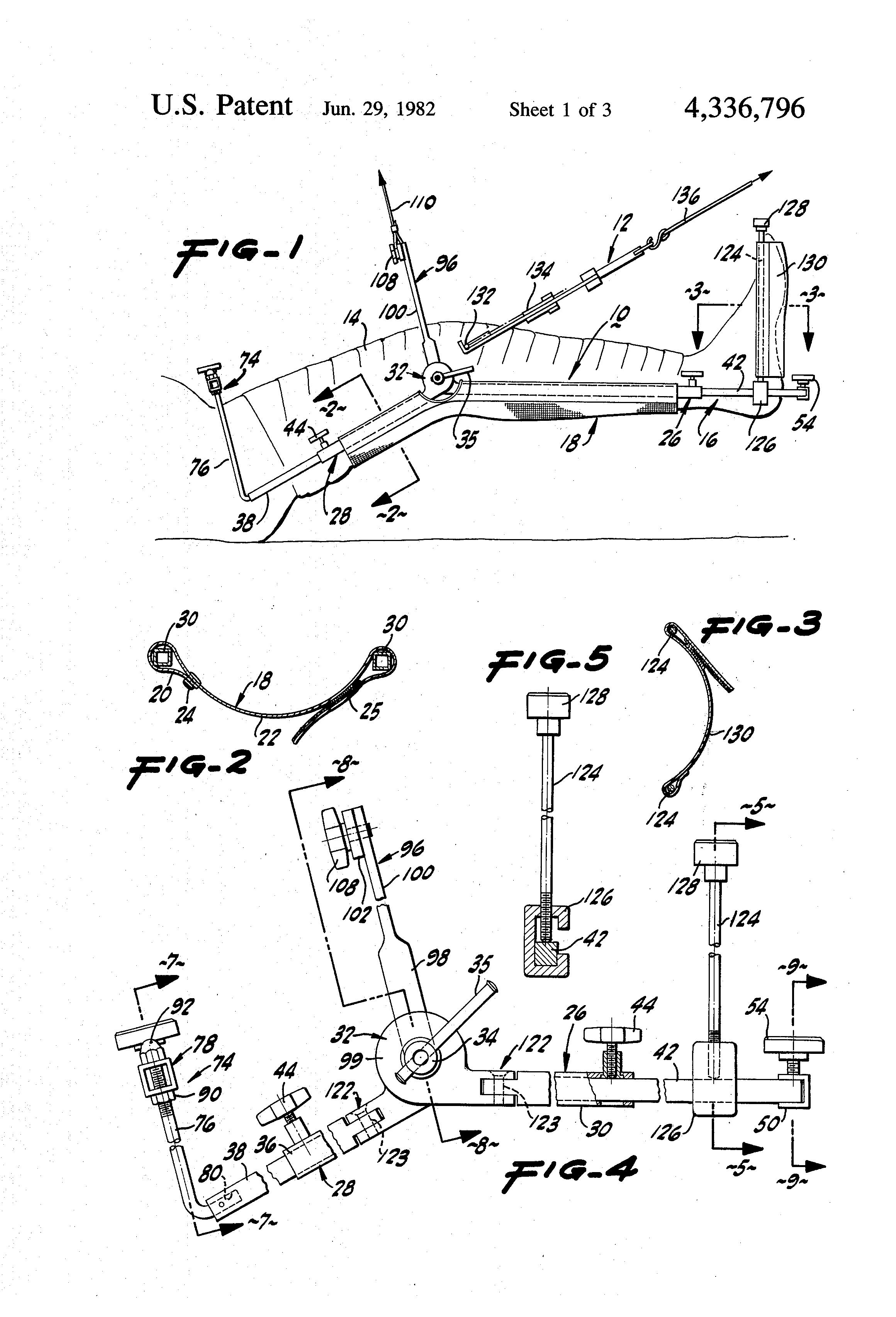 patent us4336796
