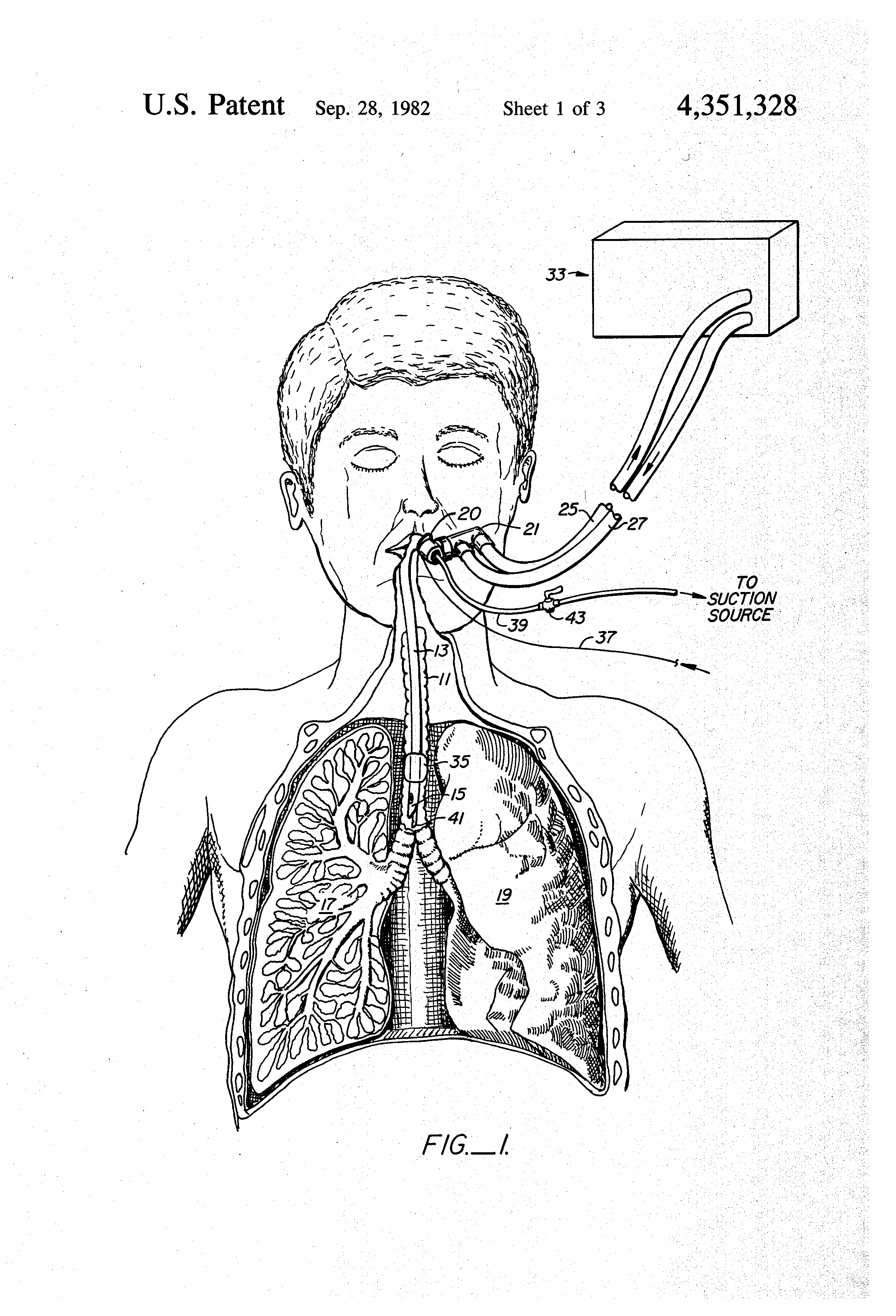 Closed Suction Catheter System For Tracheal Suctioning