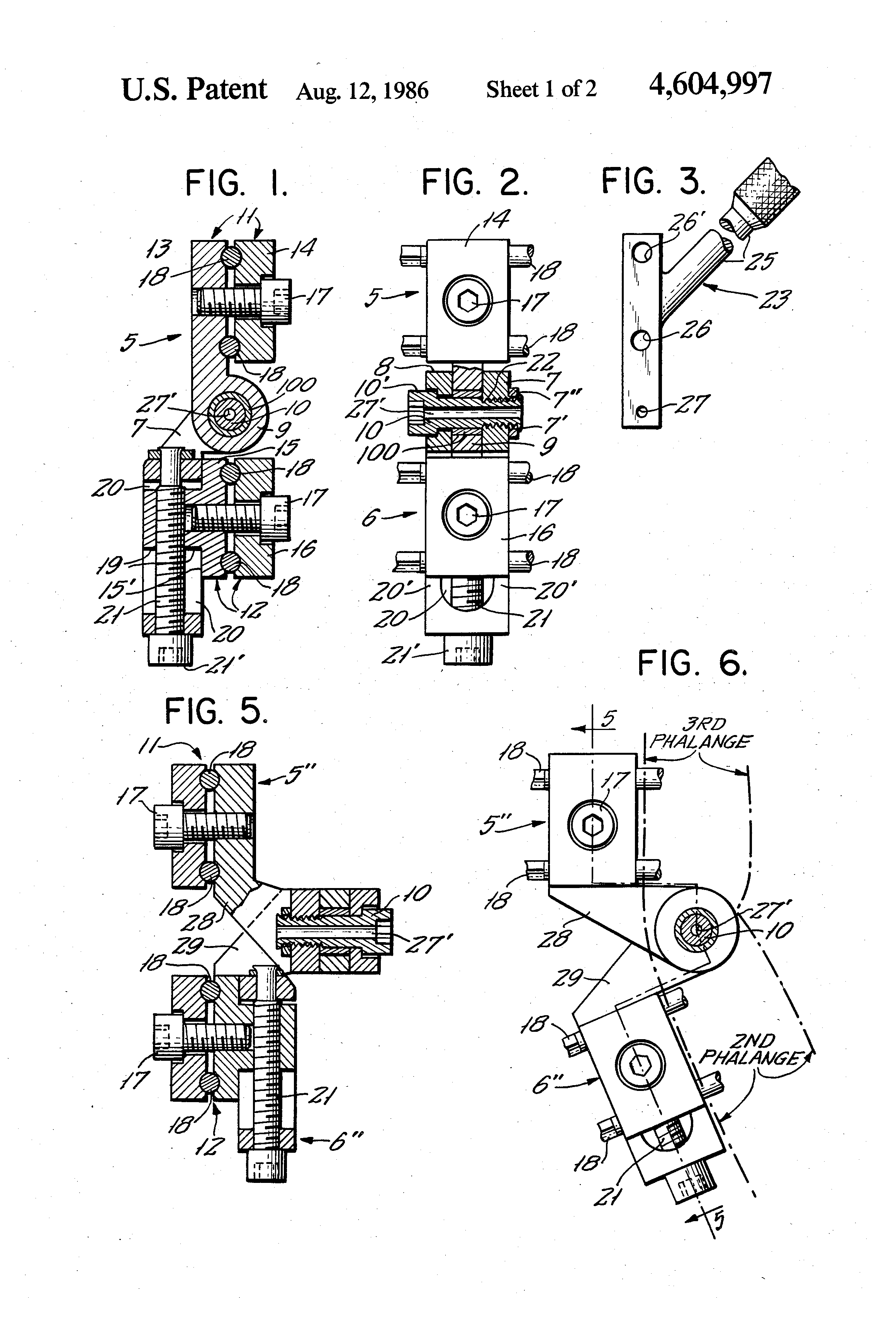 Orthopedic External Fixation Devices http://www.google.com/patents