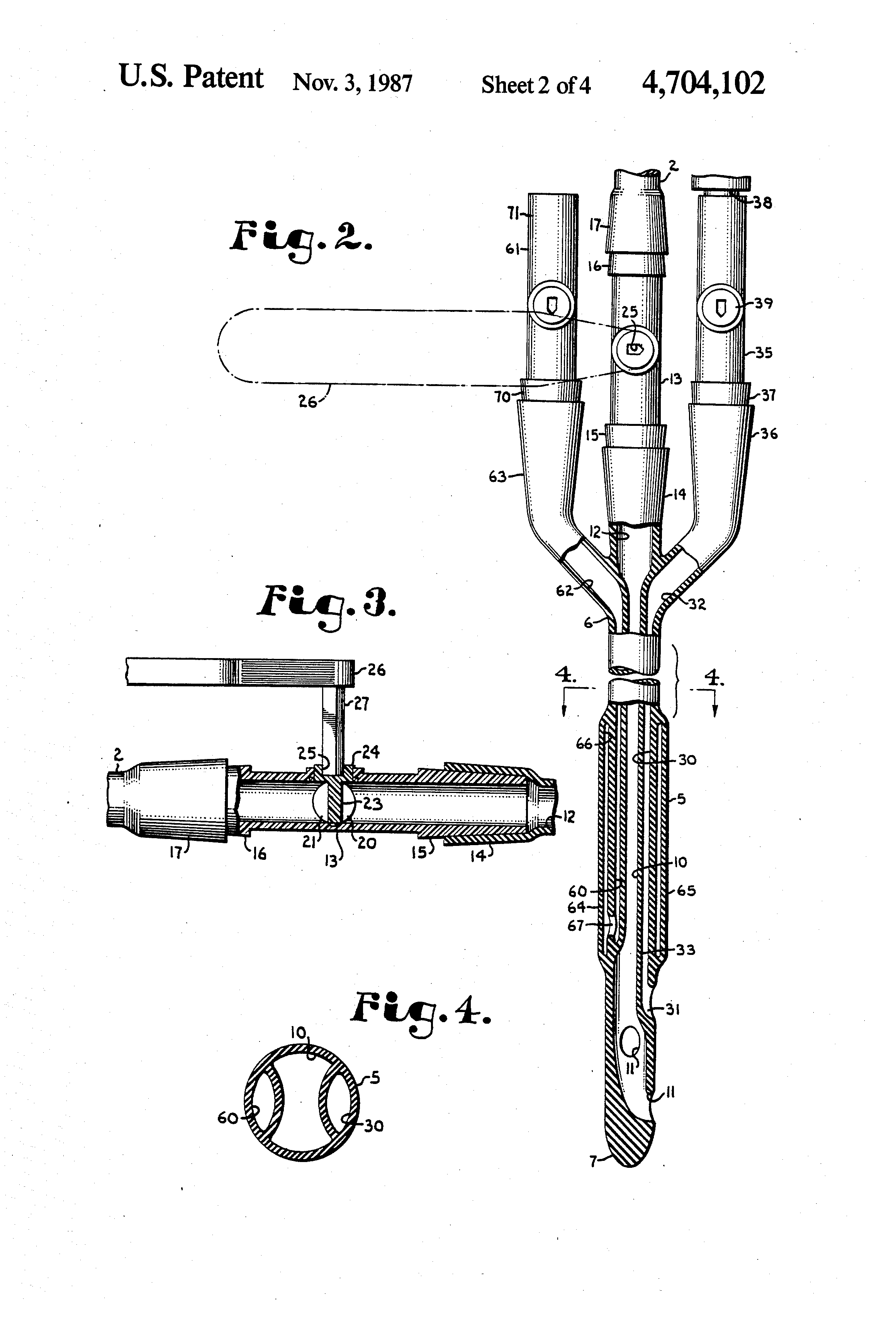 bladder irrigation set