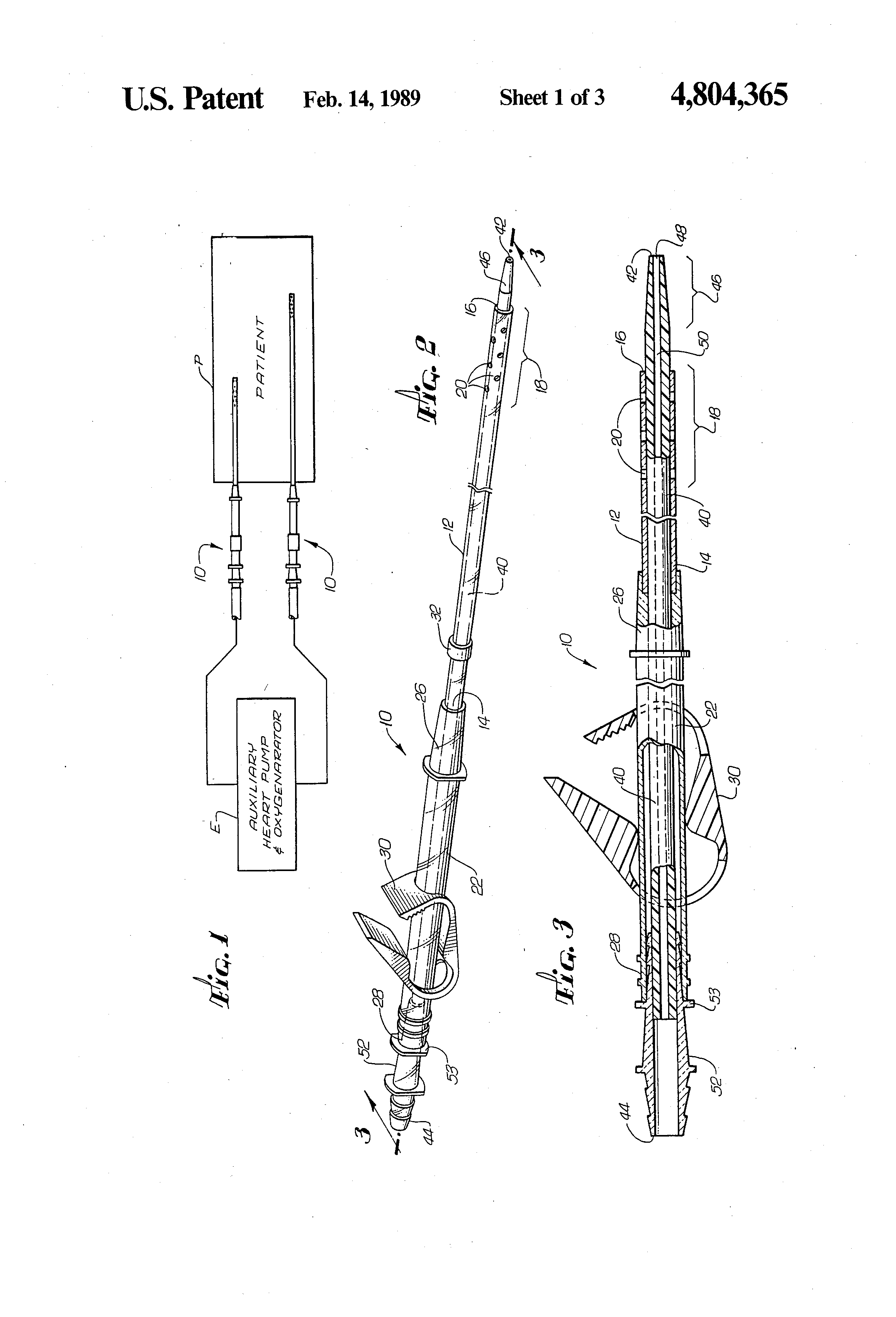 US4804365 1 wire capacity of conduit 2 on wire capacity of conduit