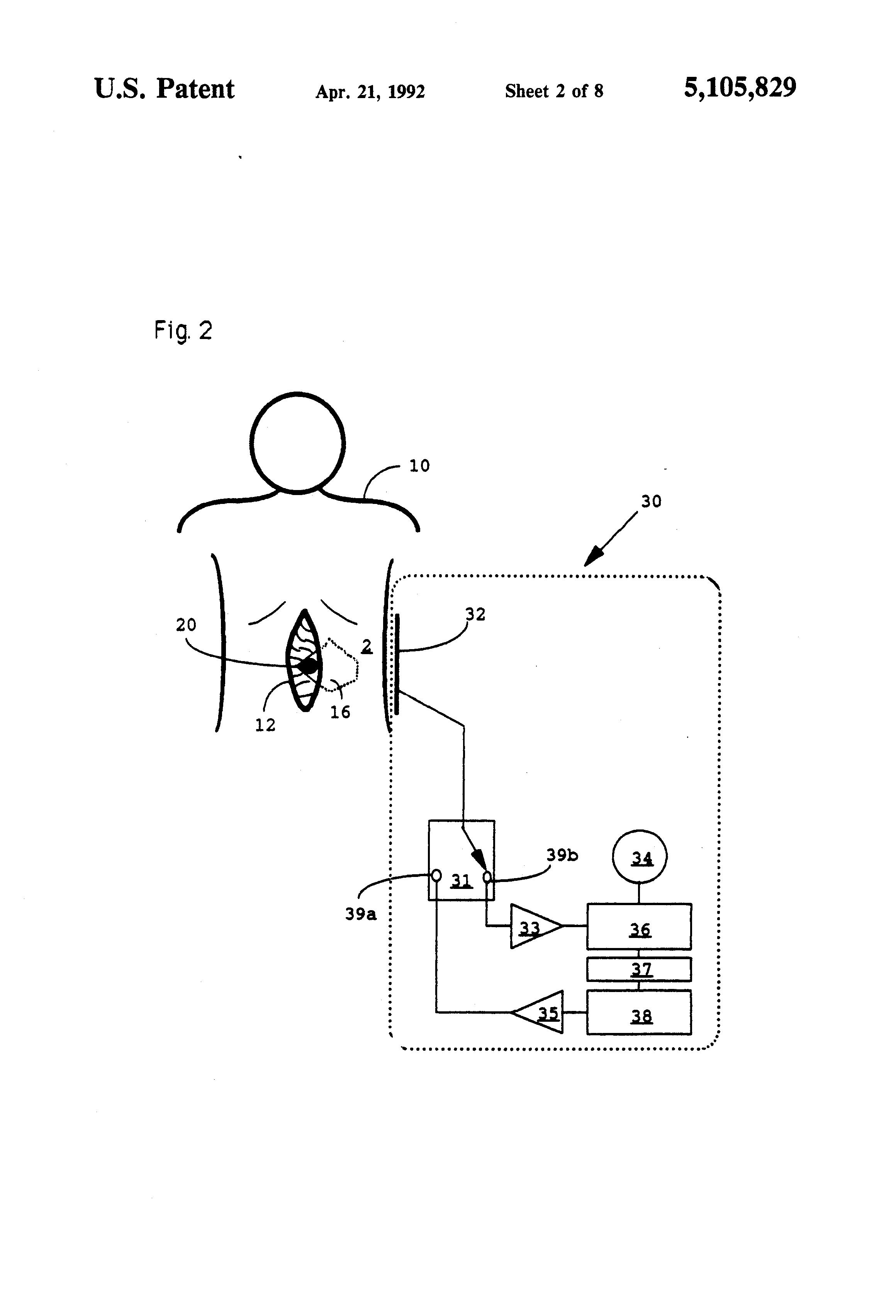 patent us5105829