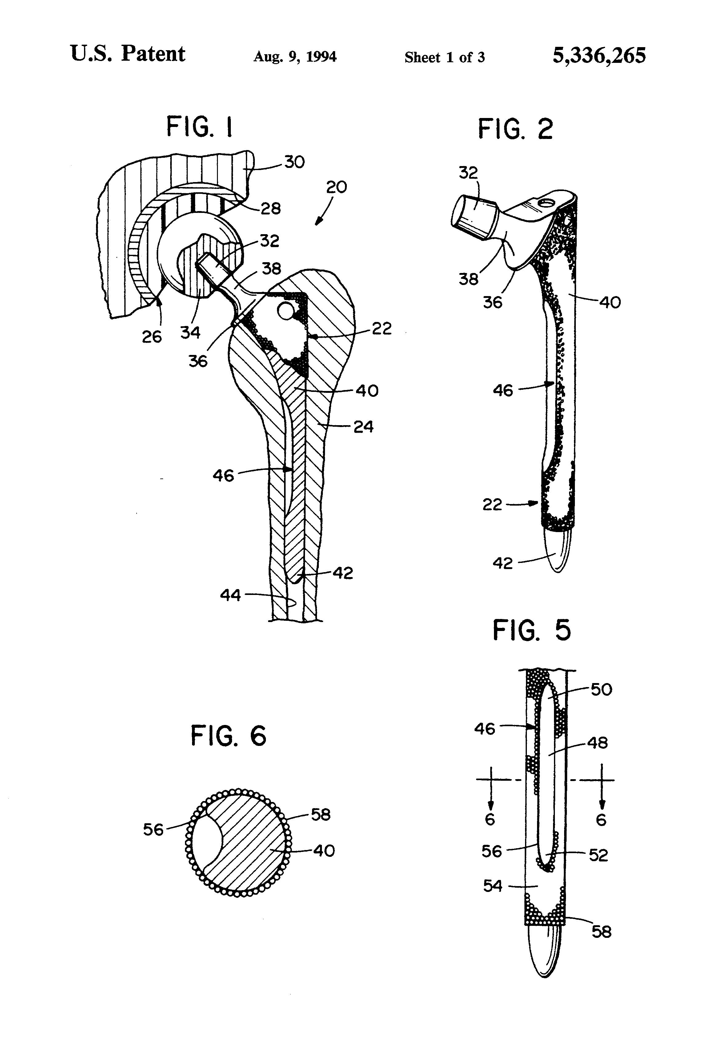 patent us5336265