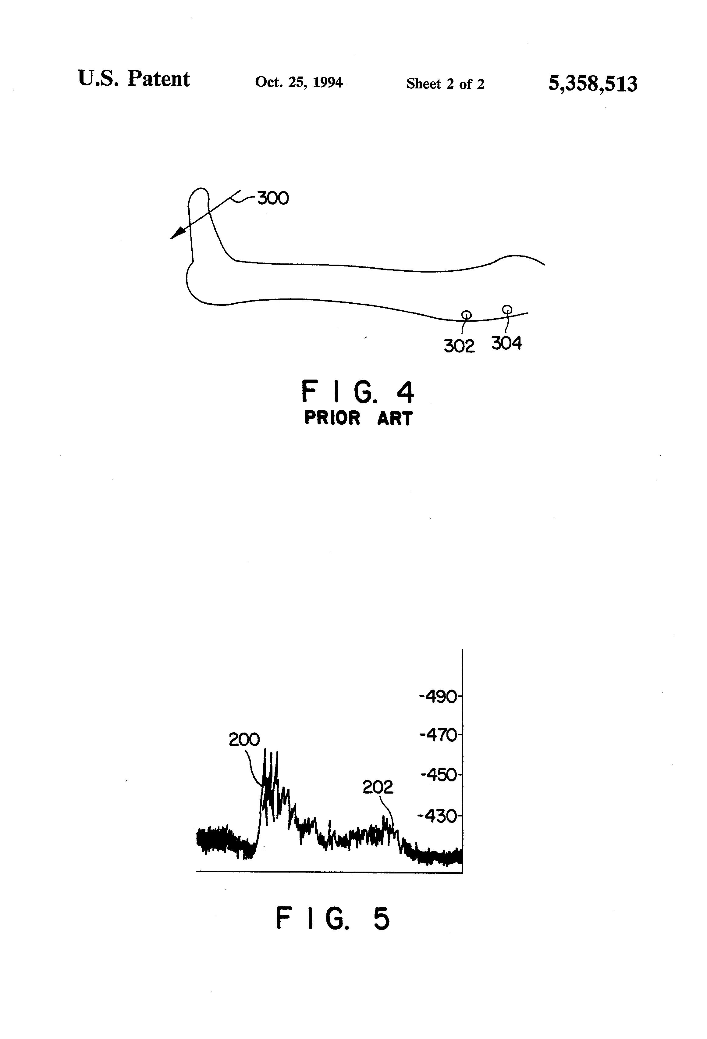 patent us5358513