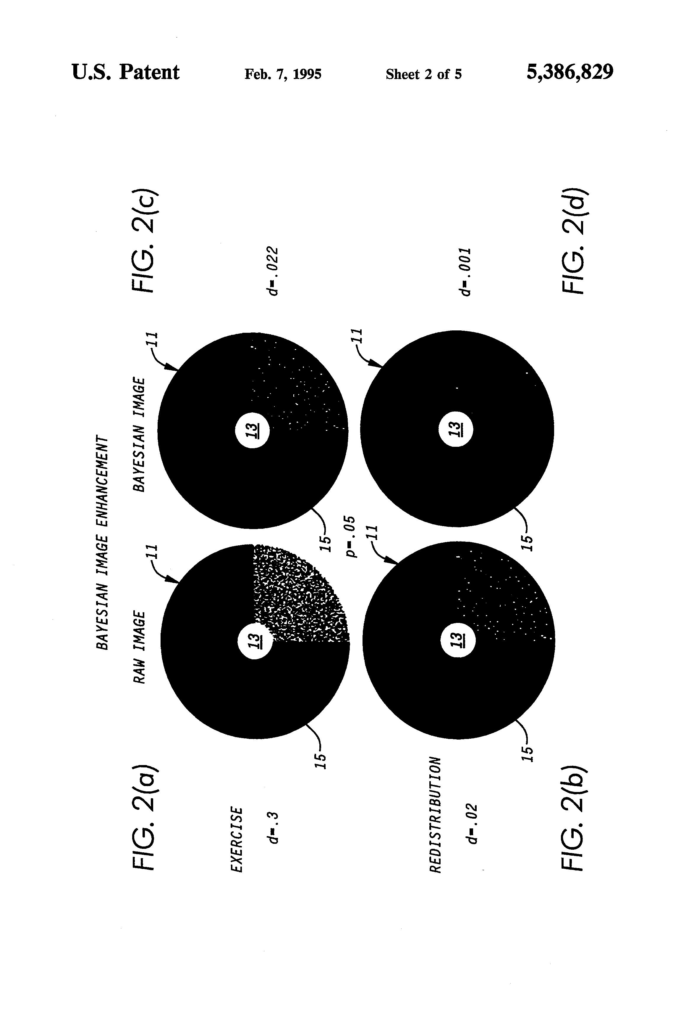 Patent US5386829