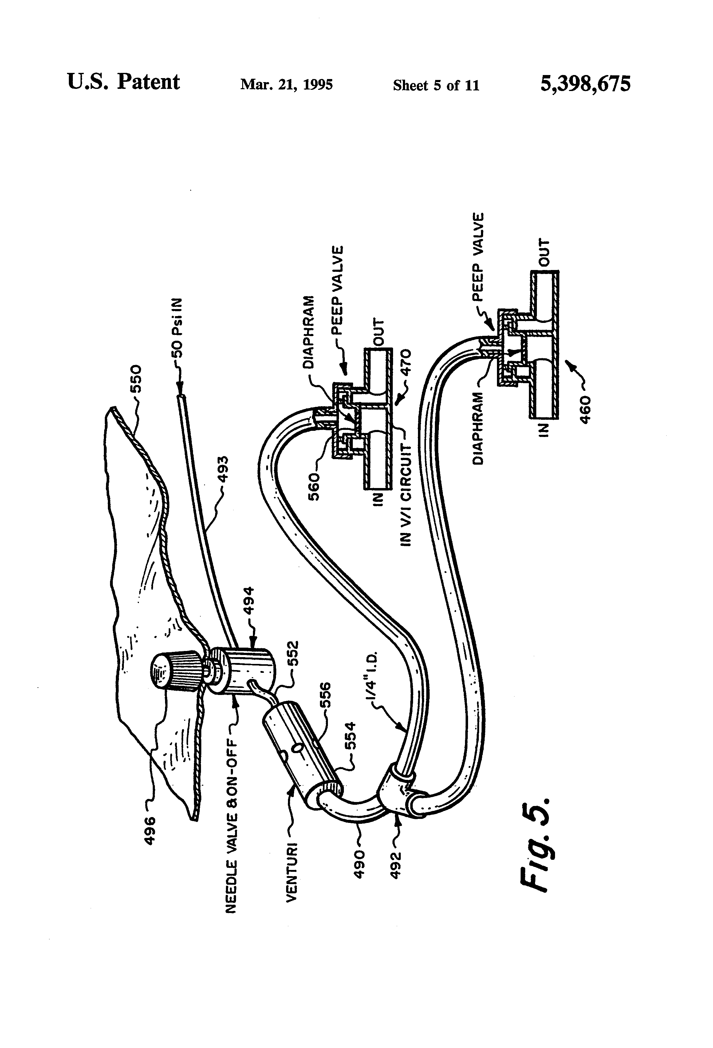 patent us5398675 - anesthesia rebreathing system