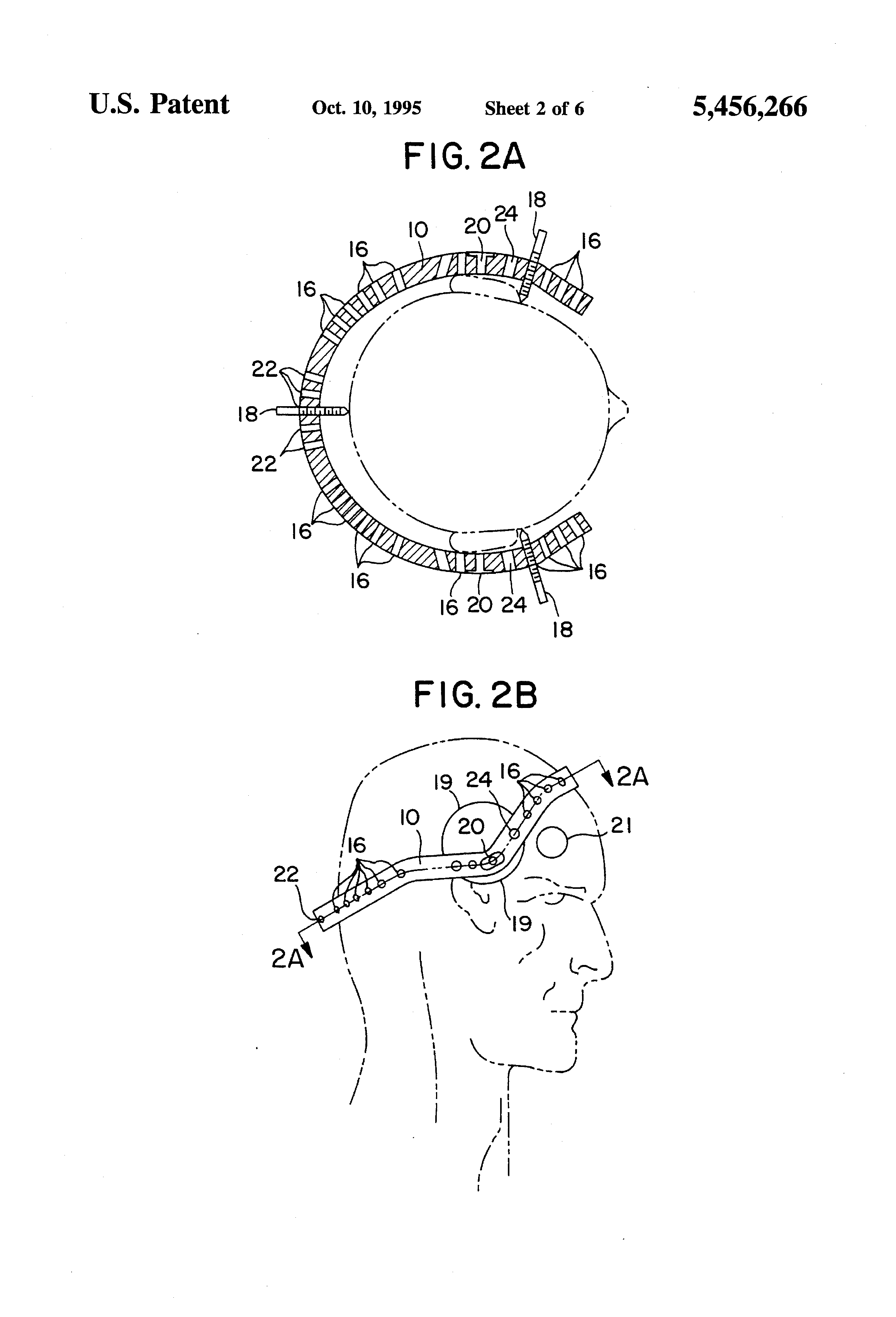 Patent US5456266 - Cranial traction tong convertible to a halo and ...
