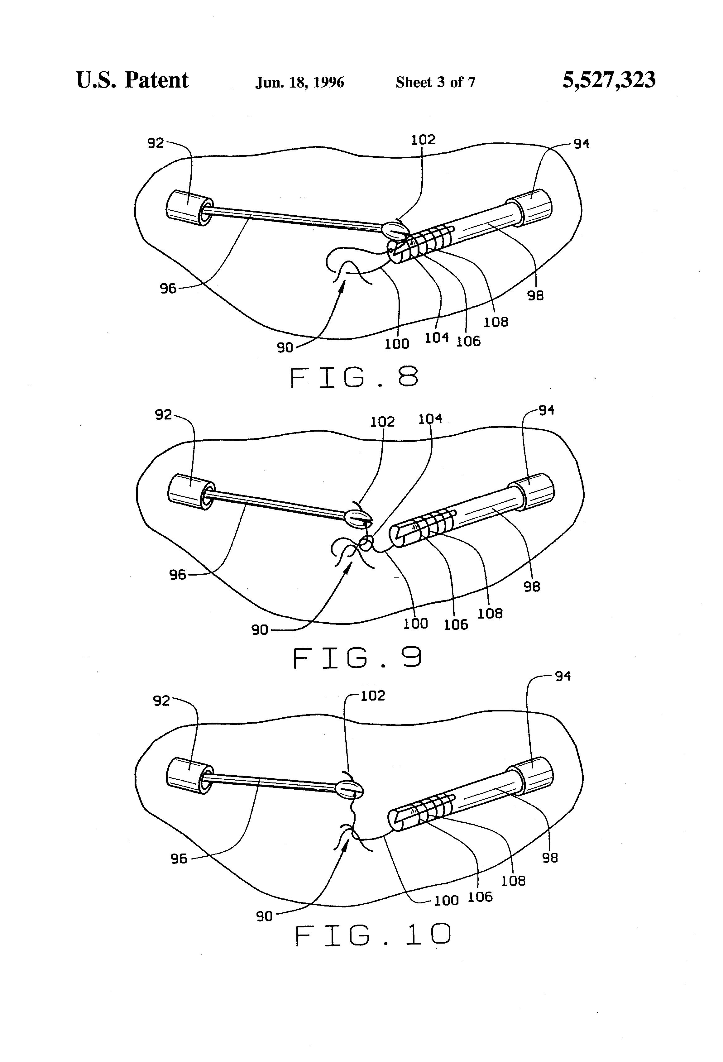 patent us5527323