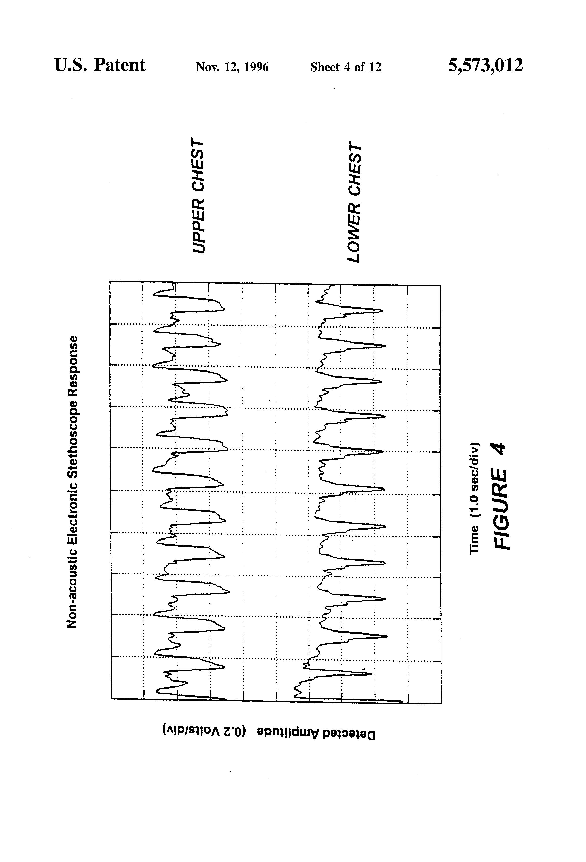 Simple Sinewave Generator Circuit Diagram Tradeoficcom Sine Wave Electronic Patent Us5573012 Body Monitoring And Imaging Apparatus Method