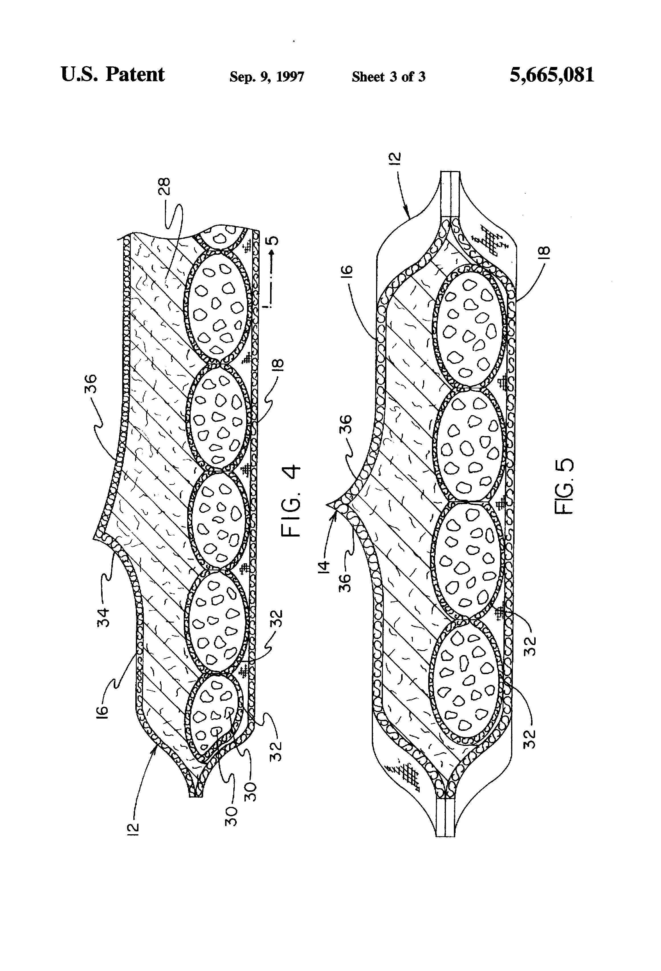 Define patent anus
