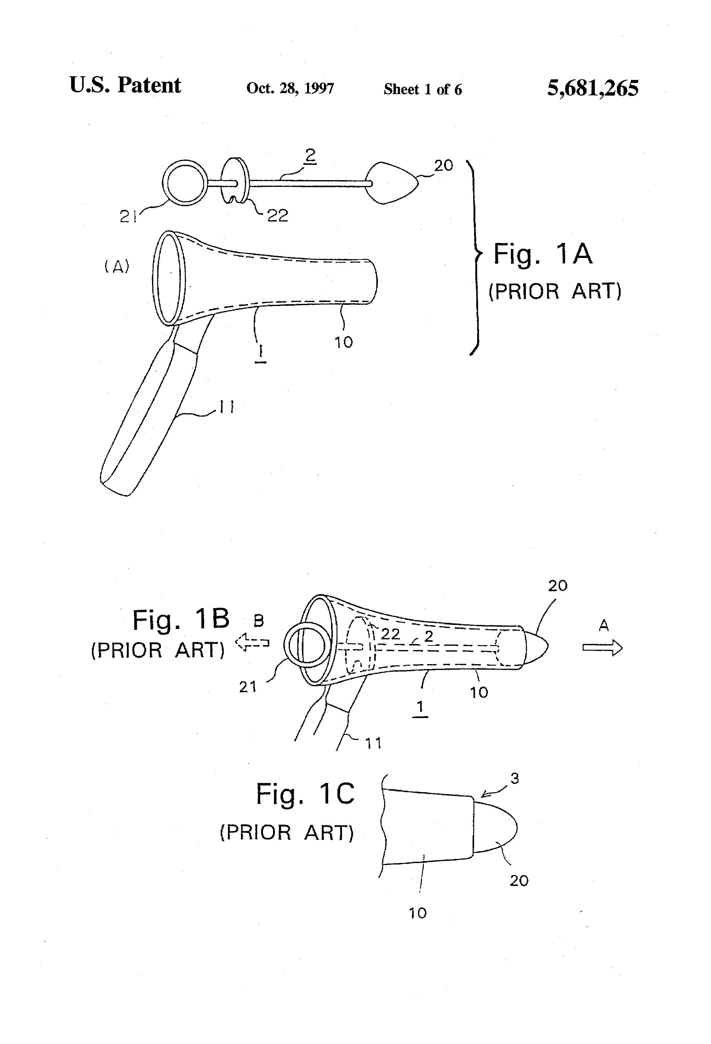 Define patent anus think, that