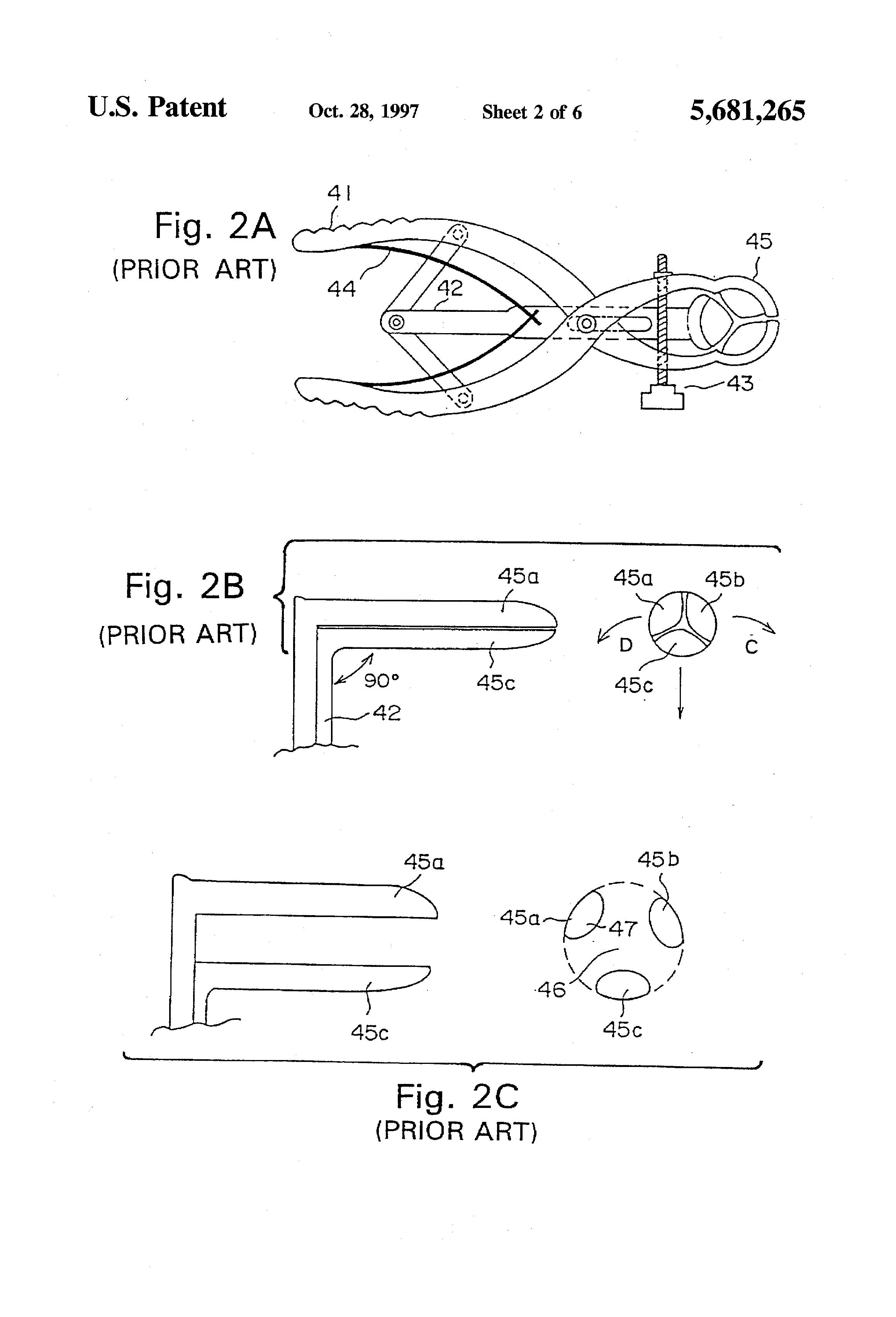 Fill blank? Define patent anus