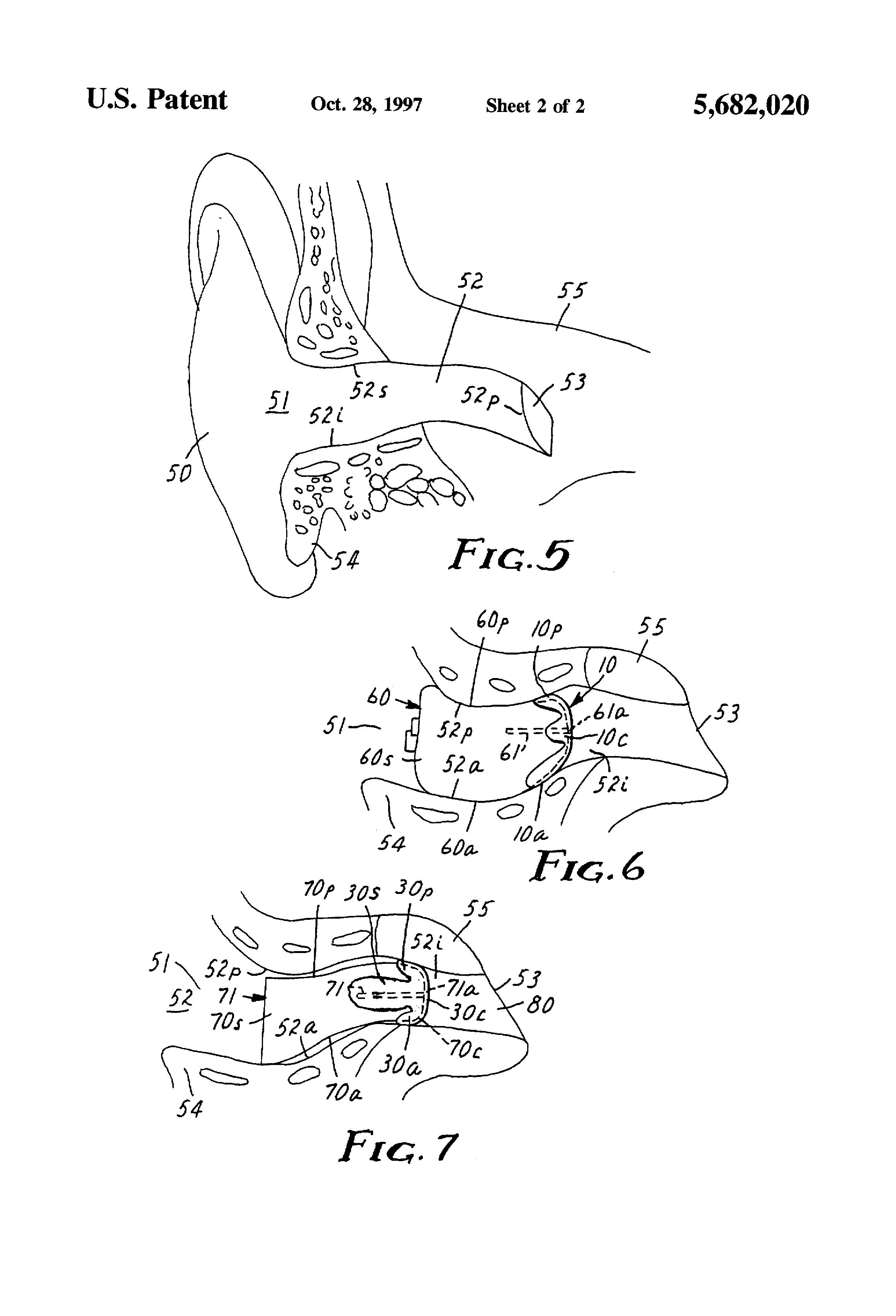 patent us5682020