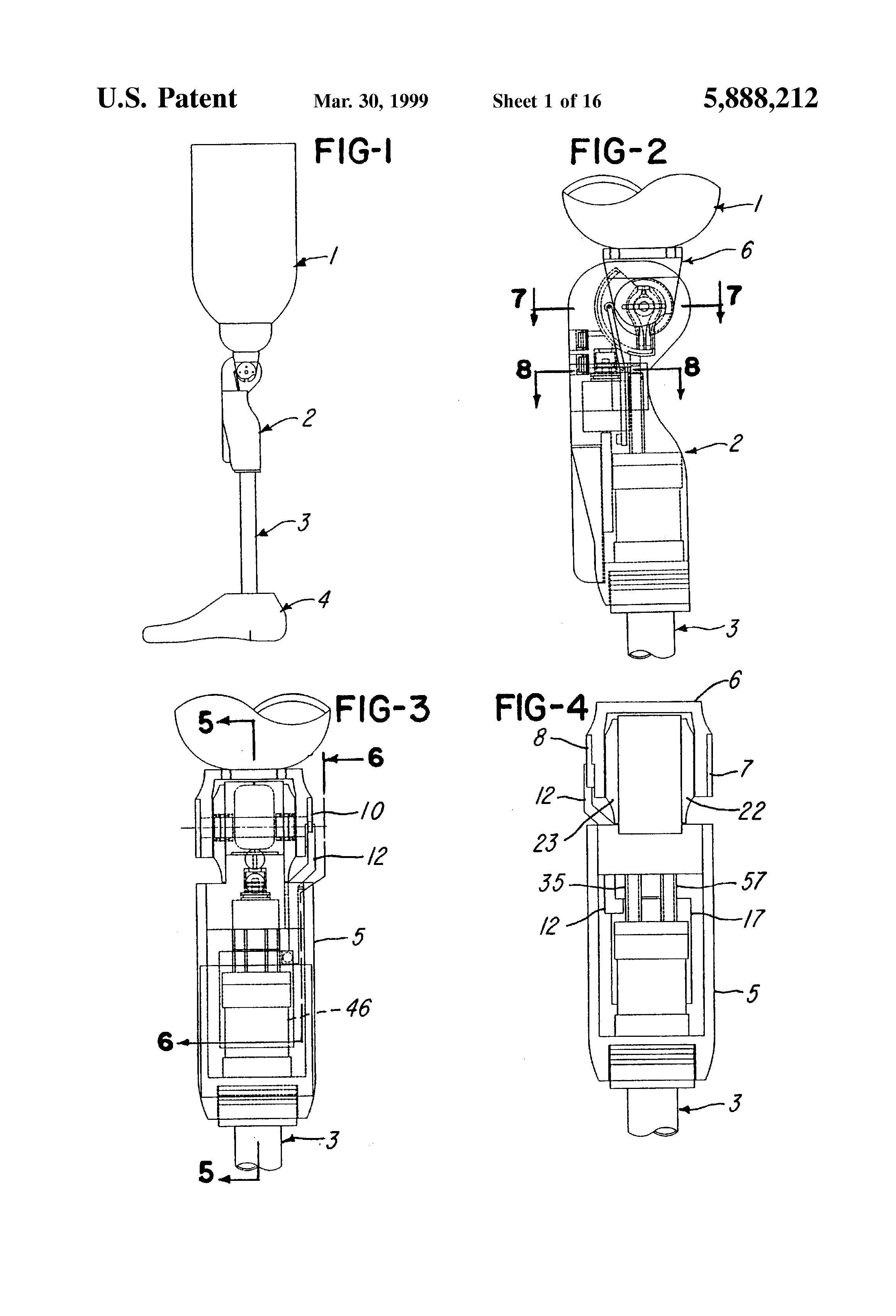 Patent US5888212 Computer controlled hydraulic resistance device – Knee Key Systems Wiring Diagram