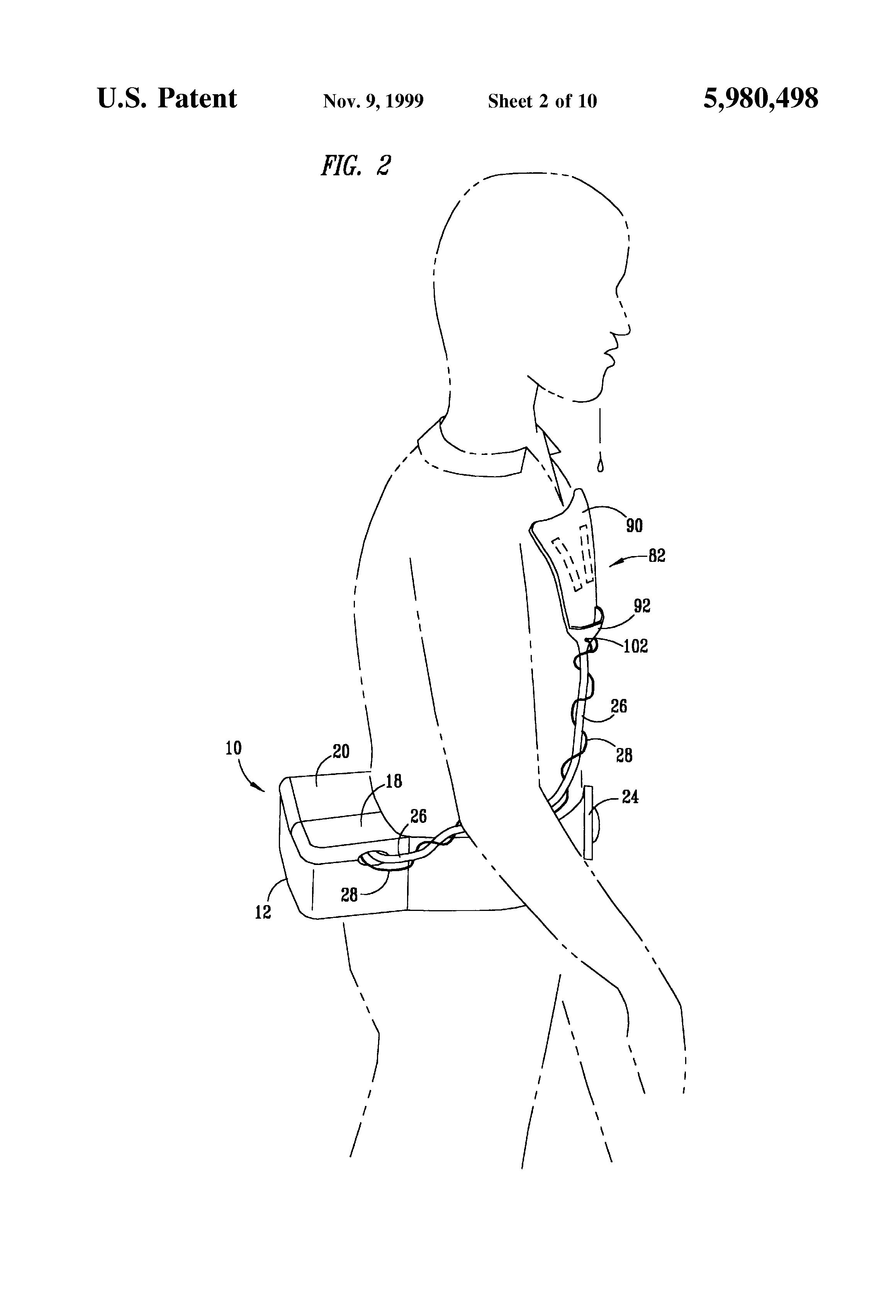 patent us5980498