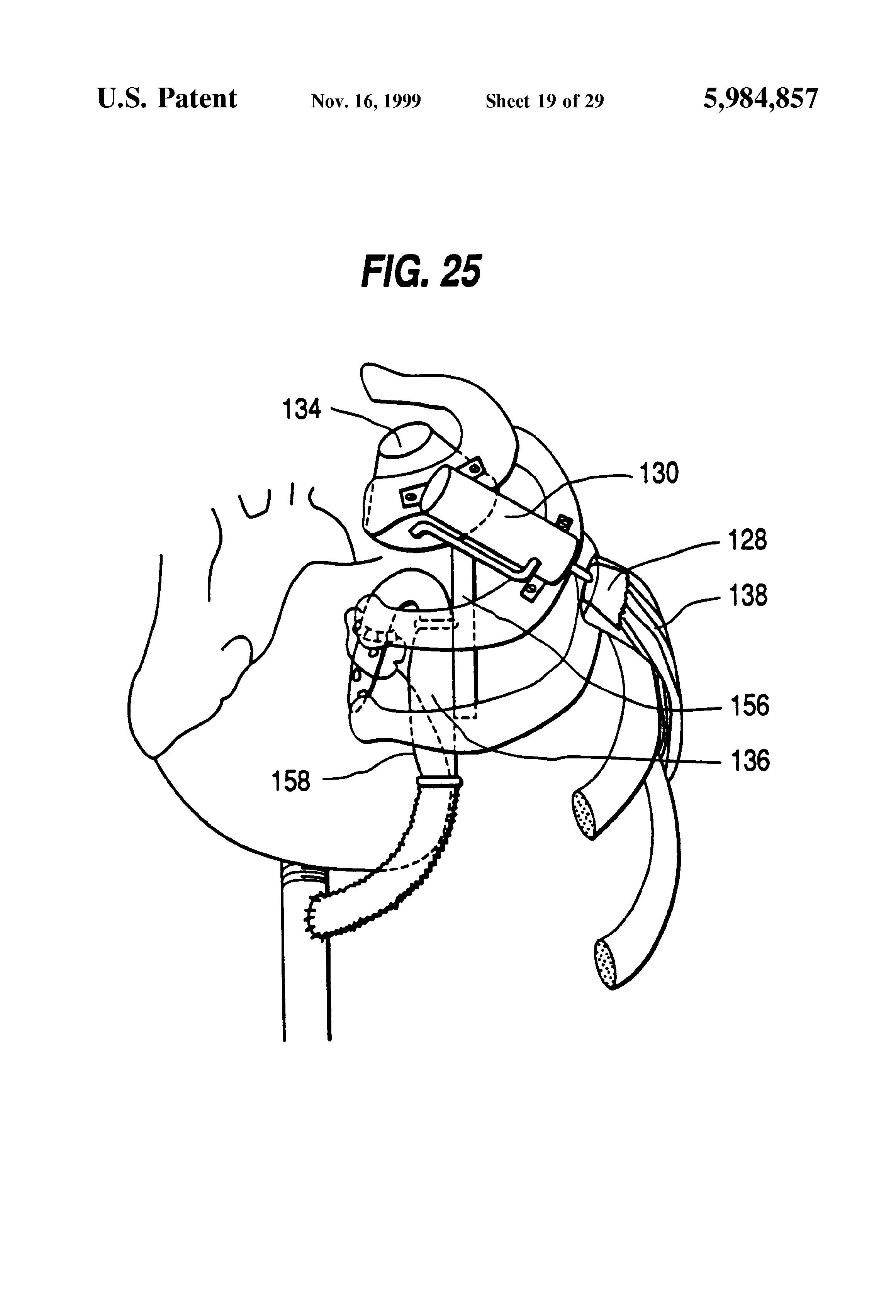 patent us5984857