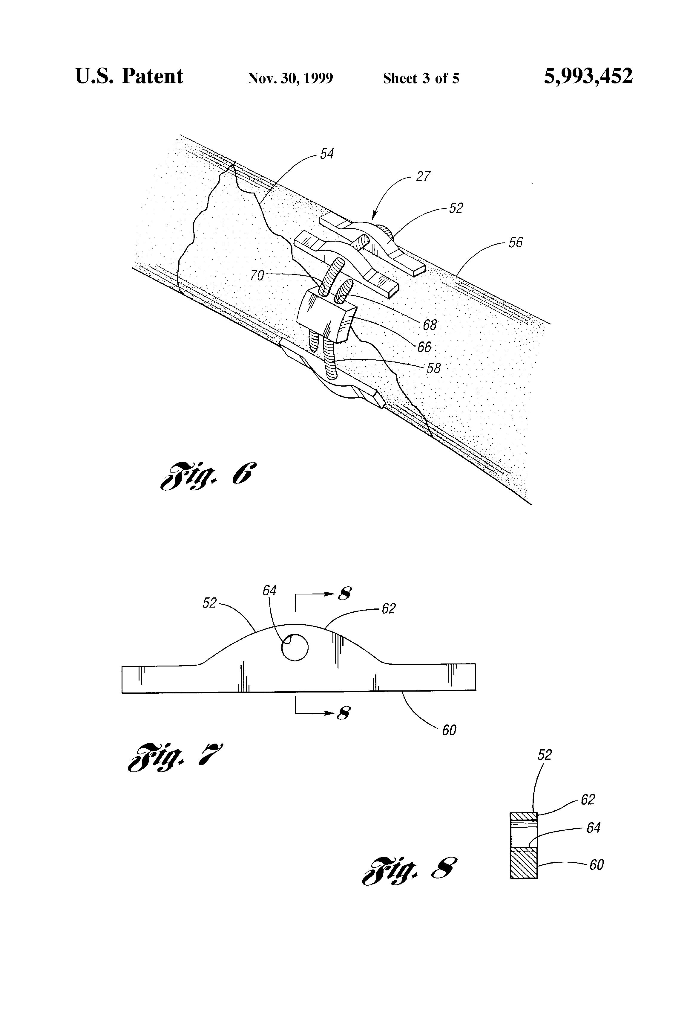 patent us5993452 - cerclage system