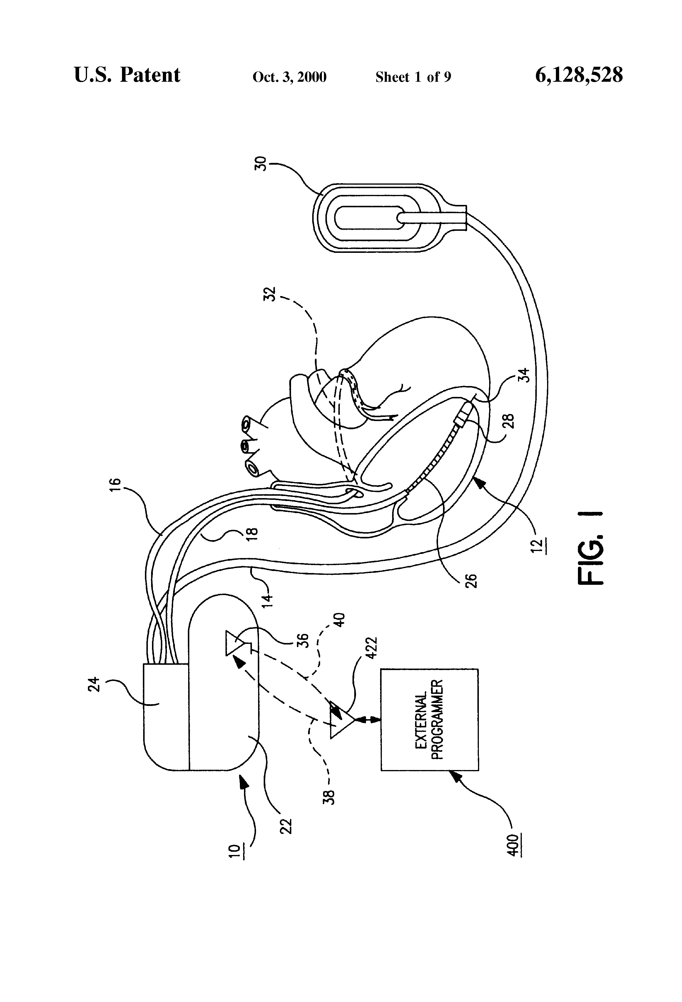 Patente Us6128528 Error Code Calculations For Data Stored In An Schematic Of A Crude Ecg Circuit Patent Drawing